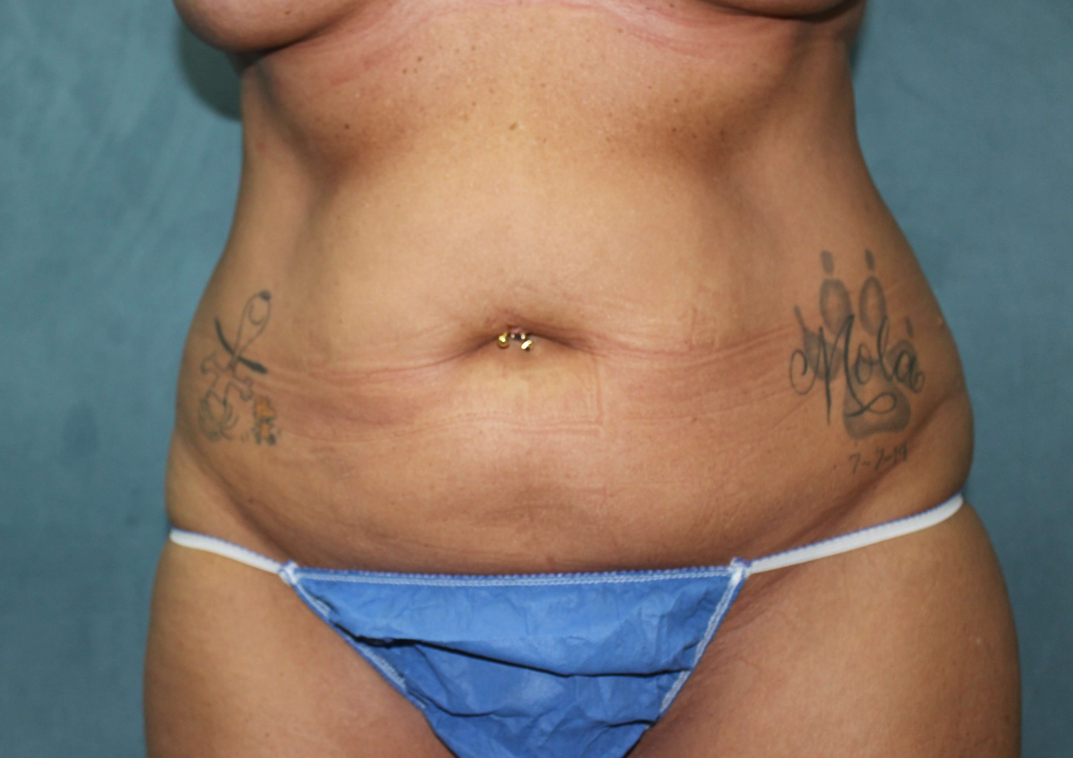 San Diego Liposuction Before