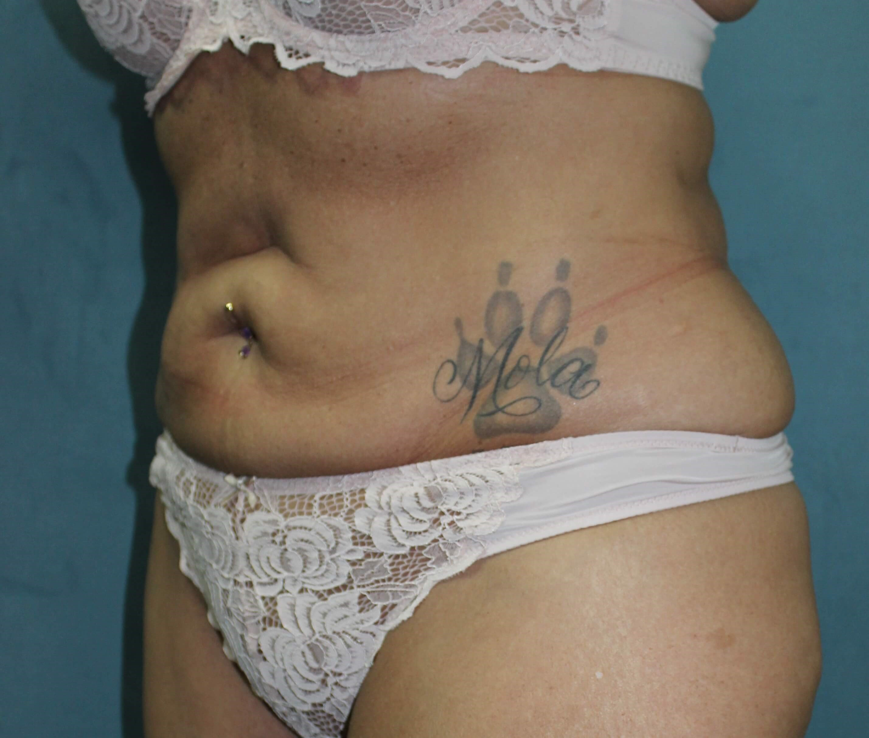 San Diego Liposuction After