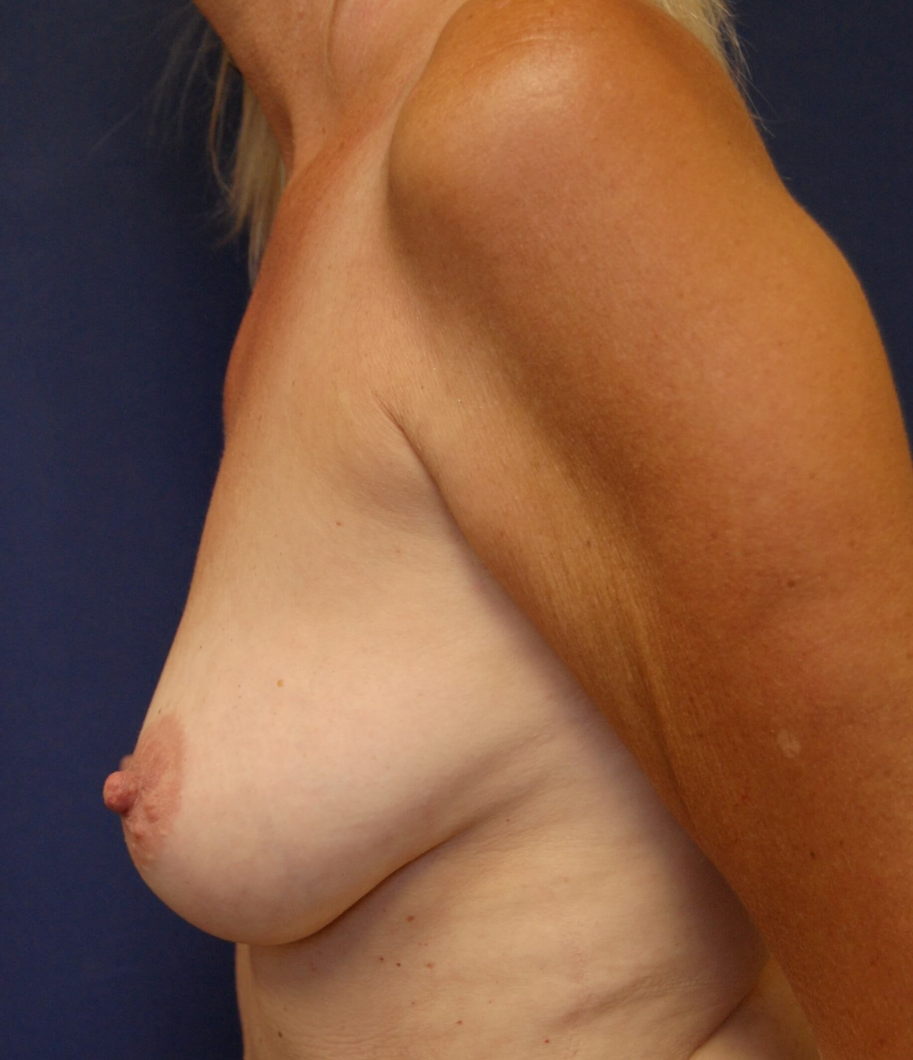 Breast Augmentation/Mastopexy Before