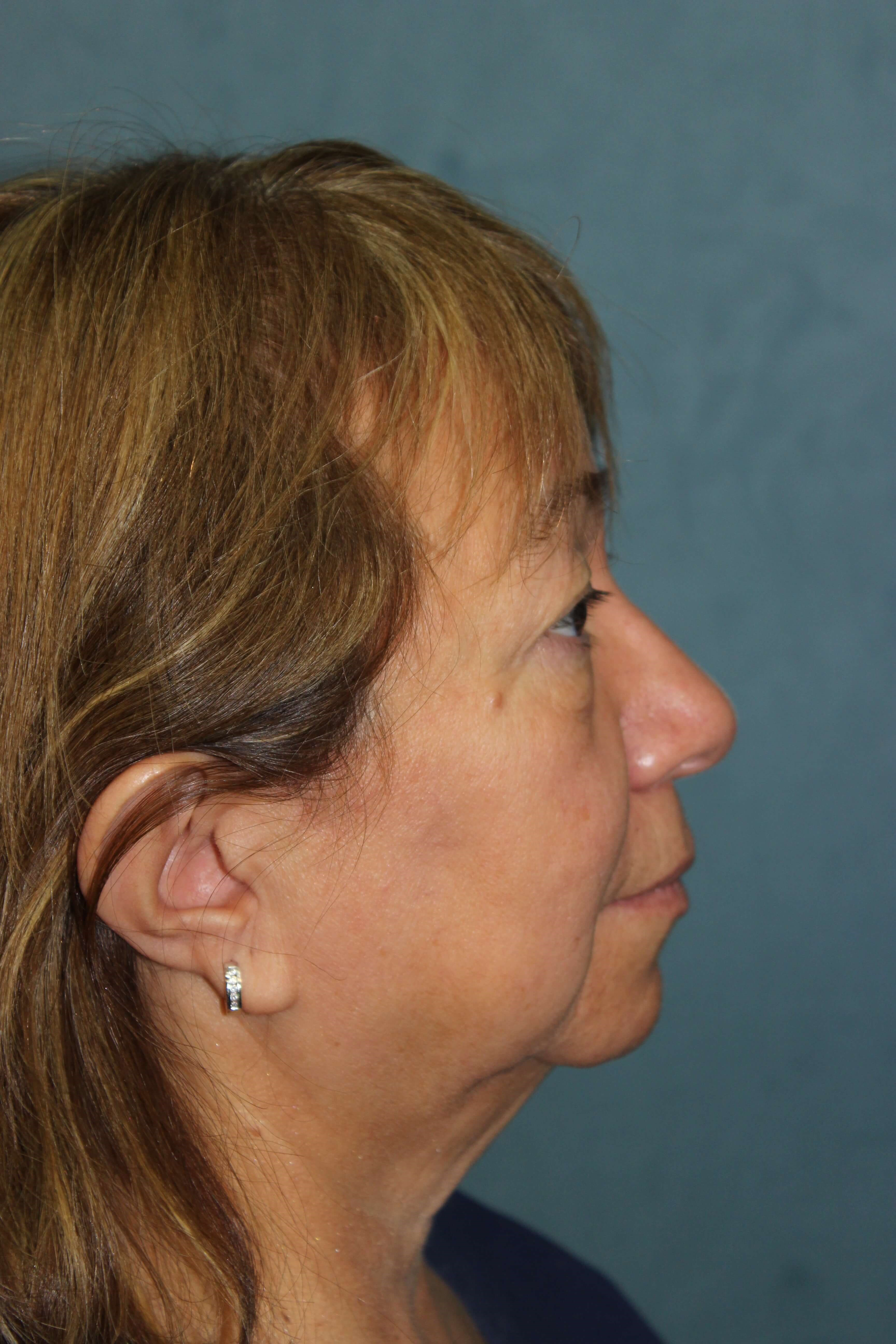 San Diego Eyelid & Facelift Before