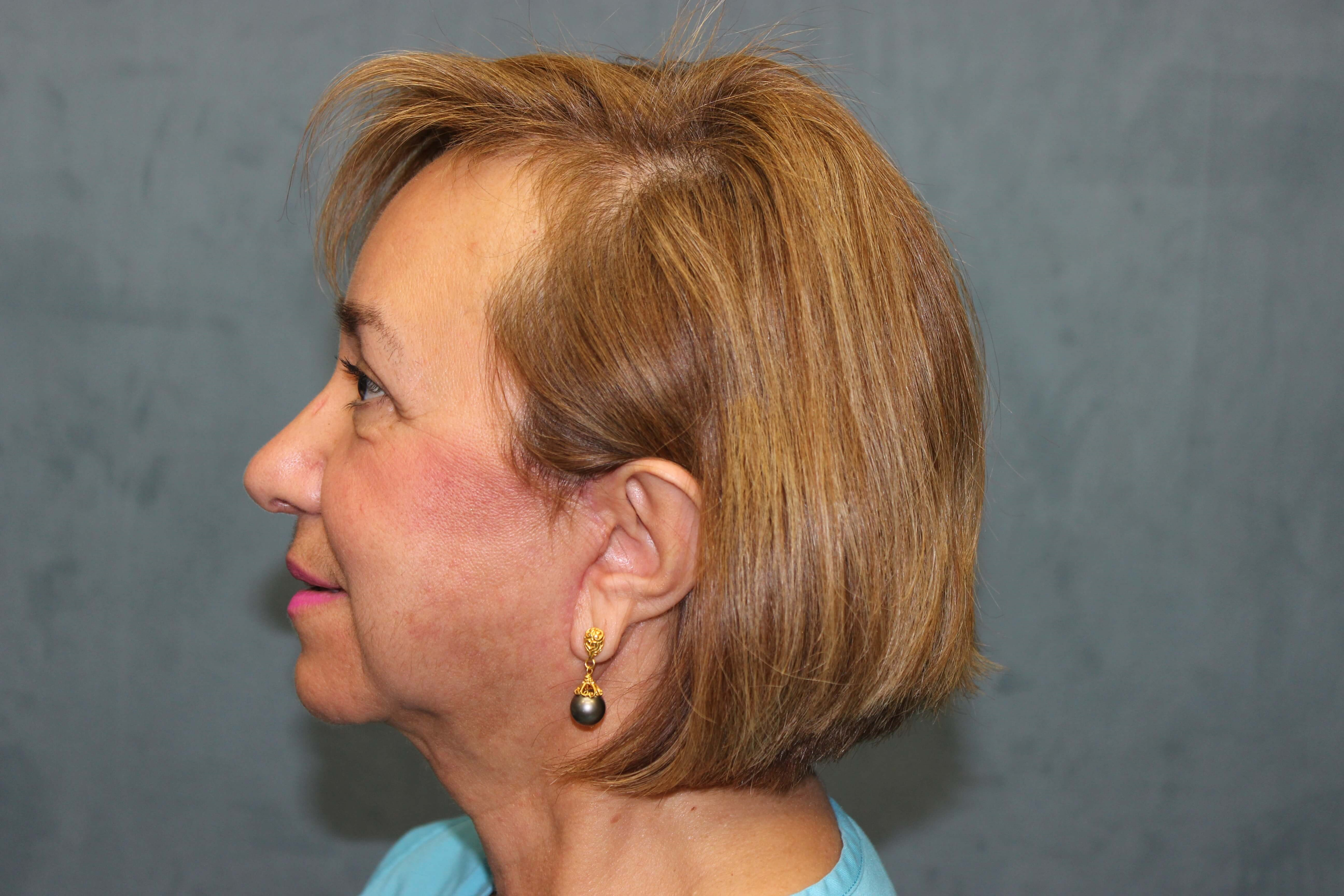 San Diego Eyelid & Facelift After