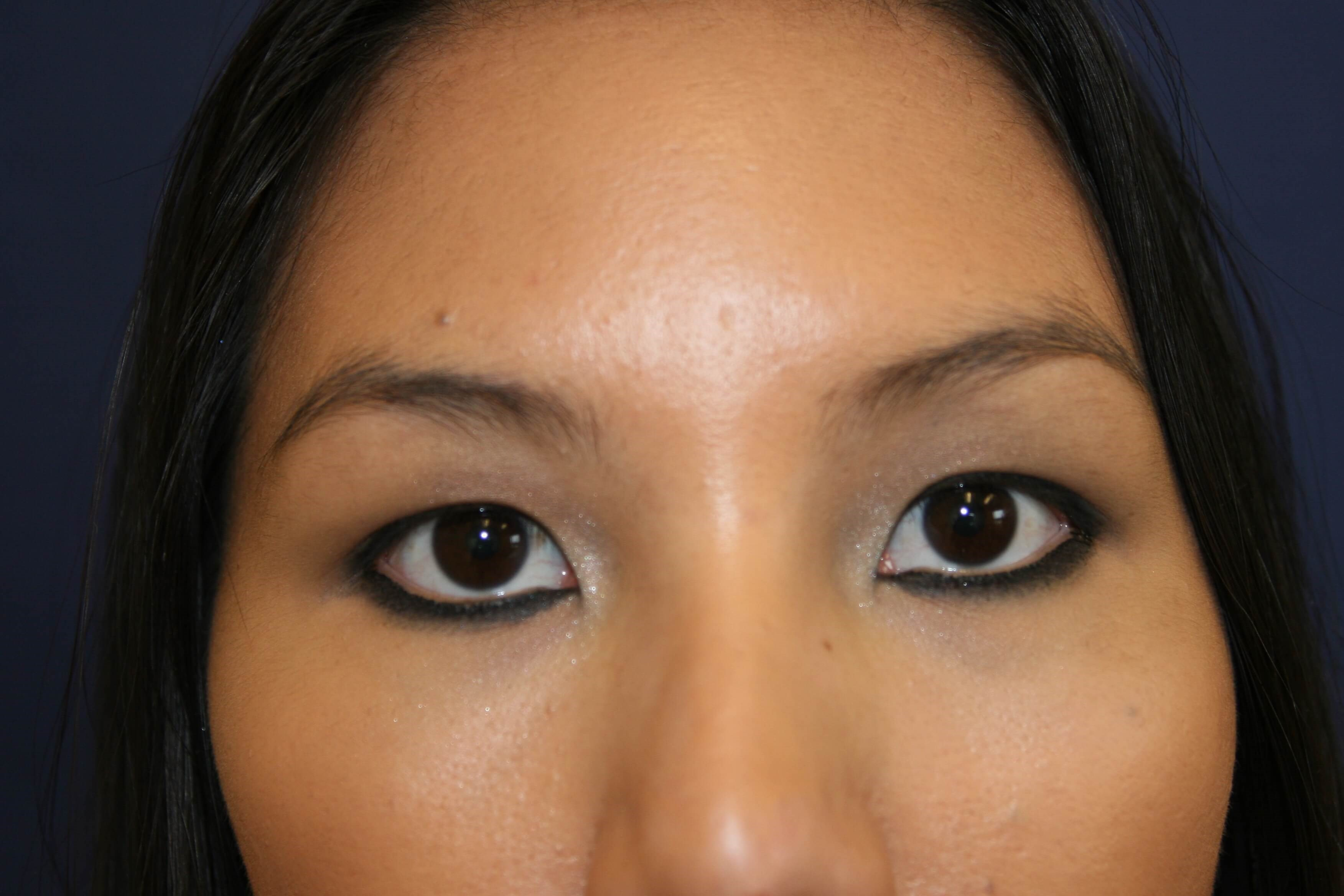 San Diego Eyelid Surgery Before