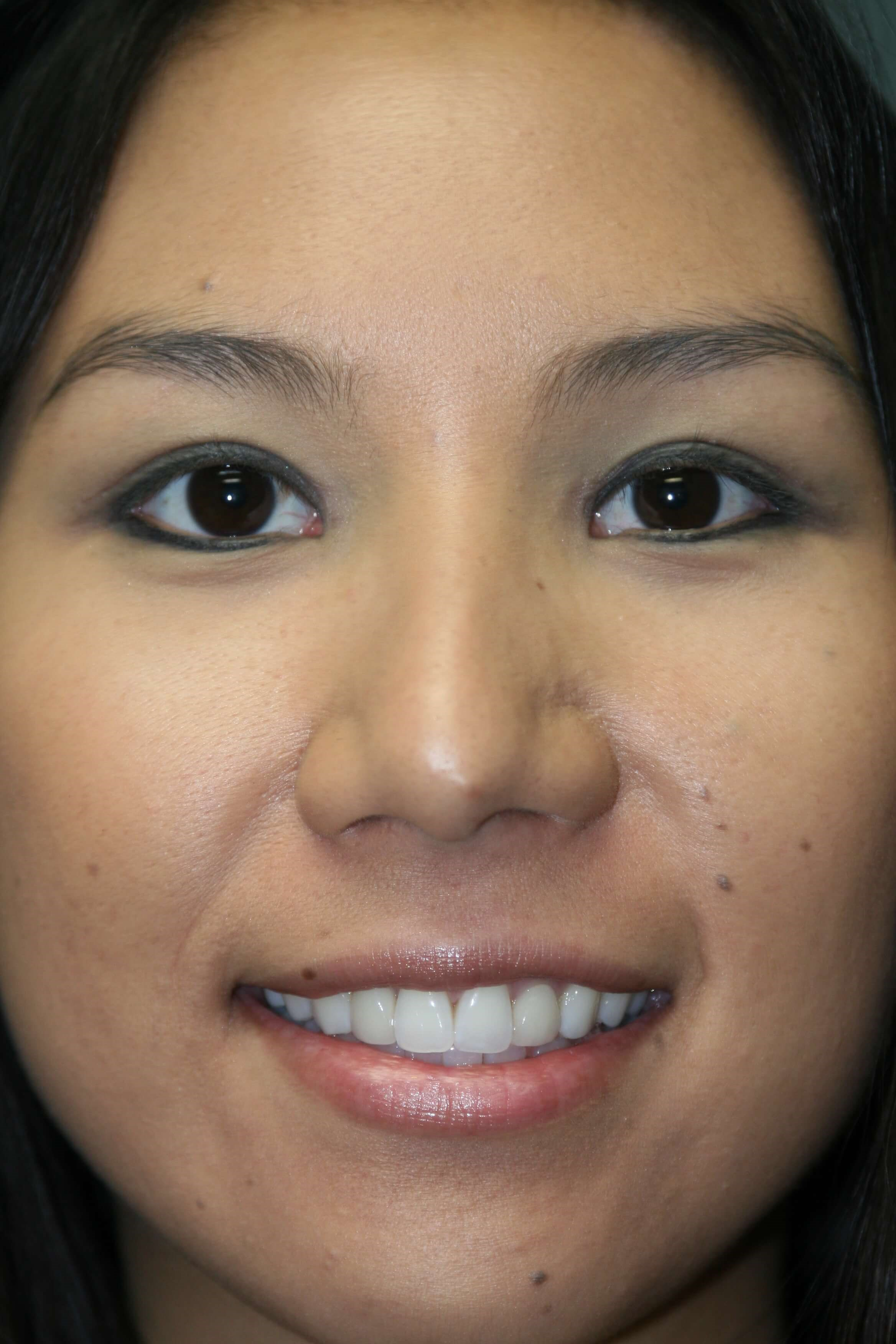 San Diego Eyelid Surgery After