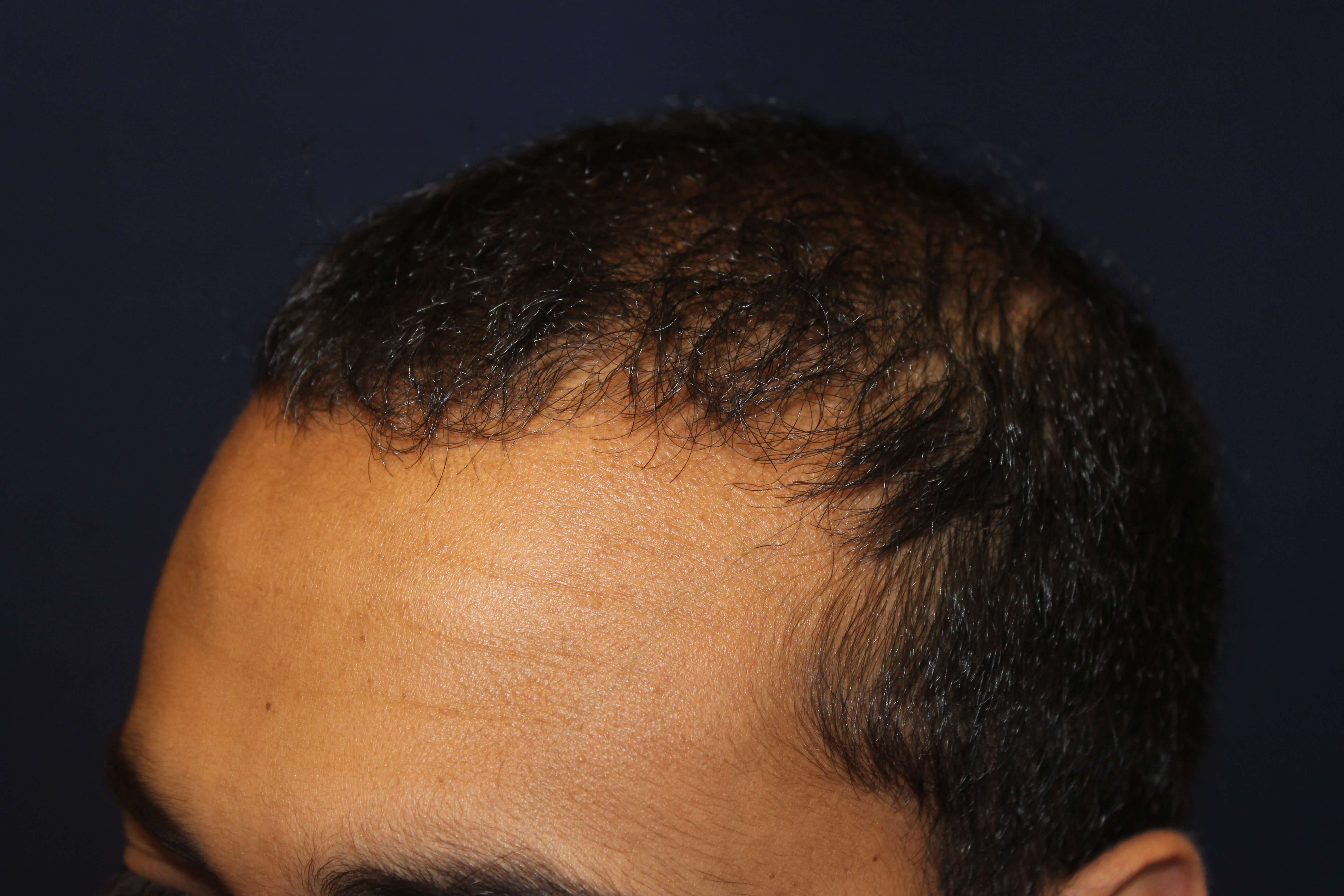San Diego Neograft Hair Surg After