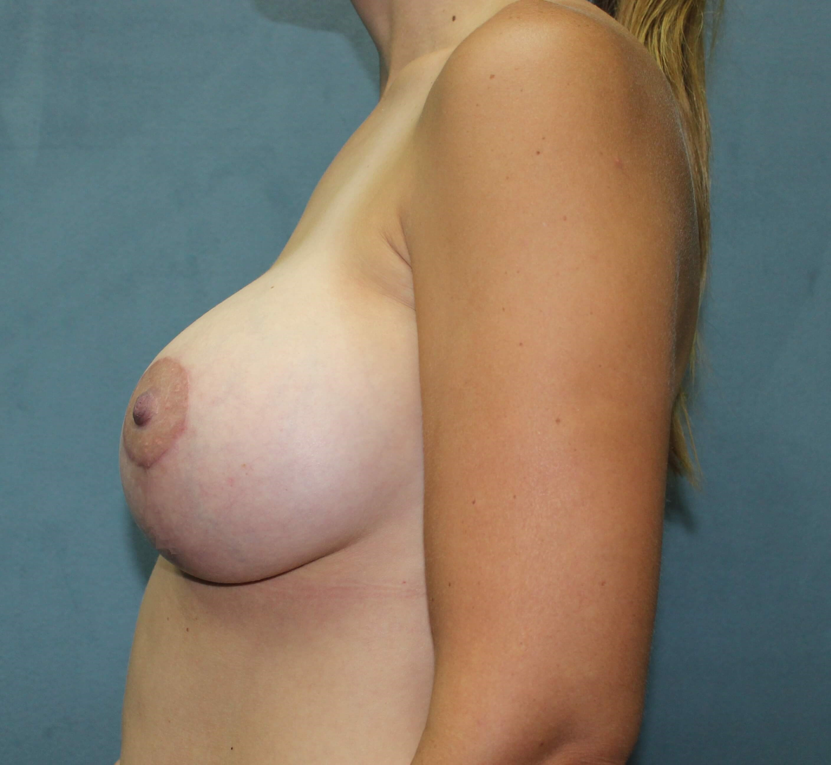San Diego Breast Aug & Lift After