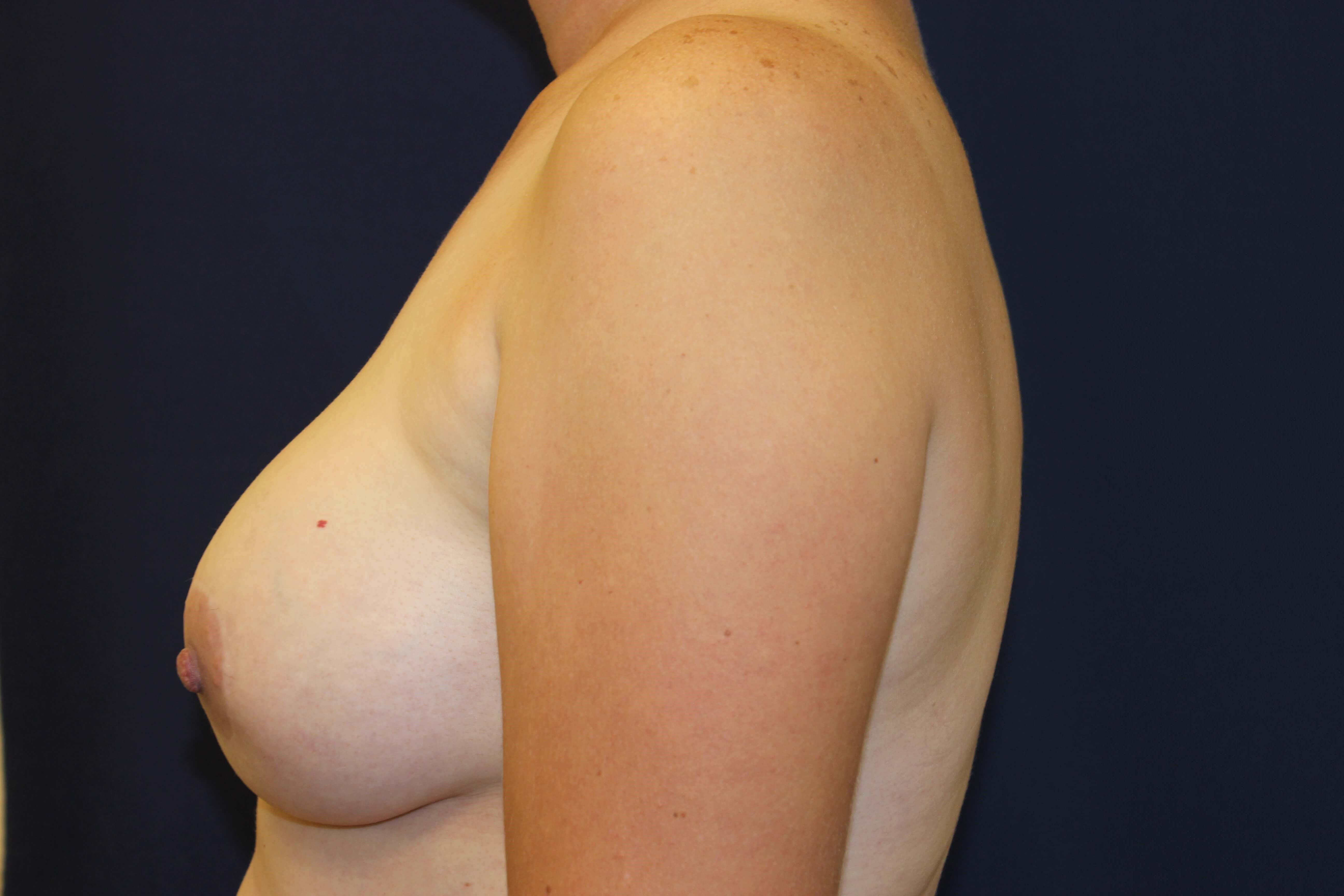 Breast Aug & Lift After