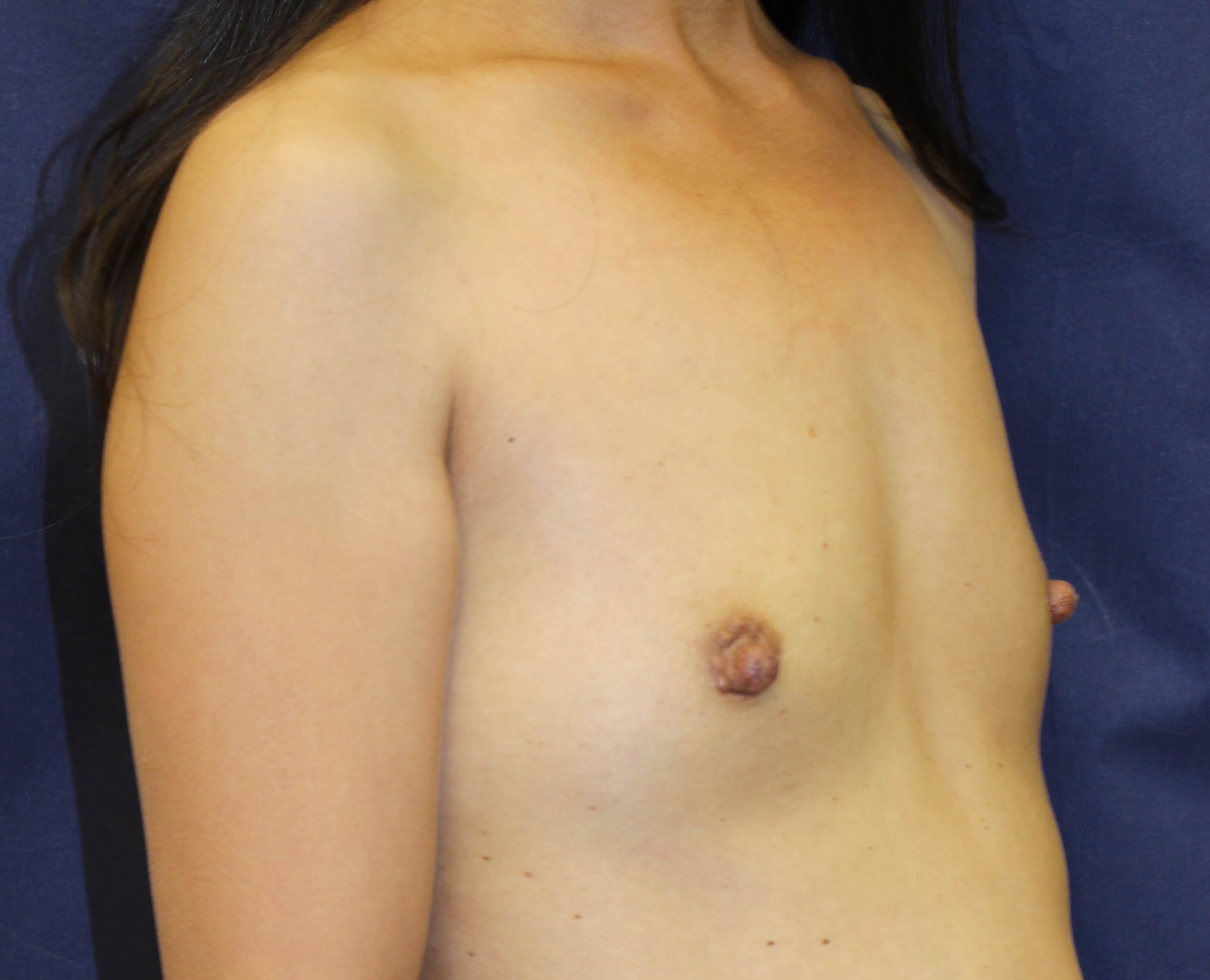 Breast Augmentation San Diego Before