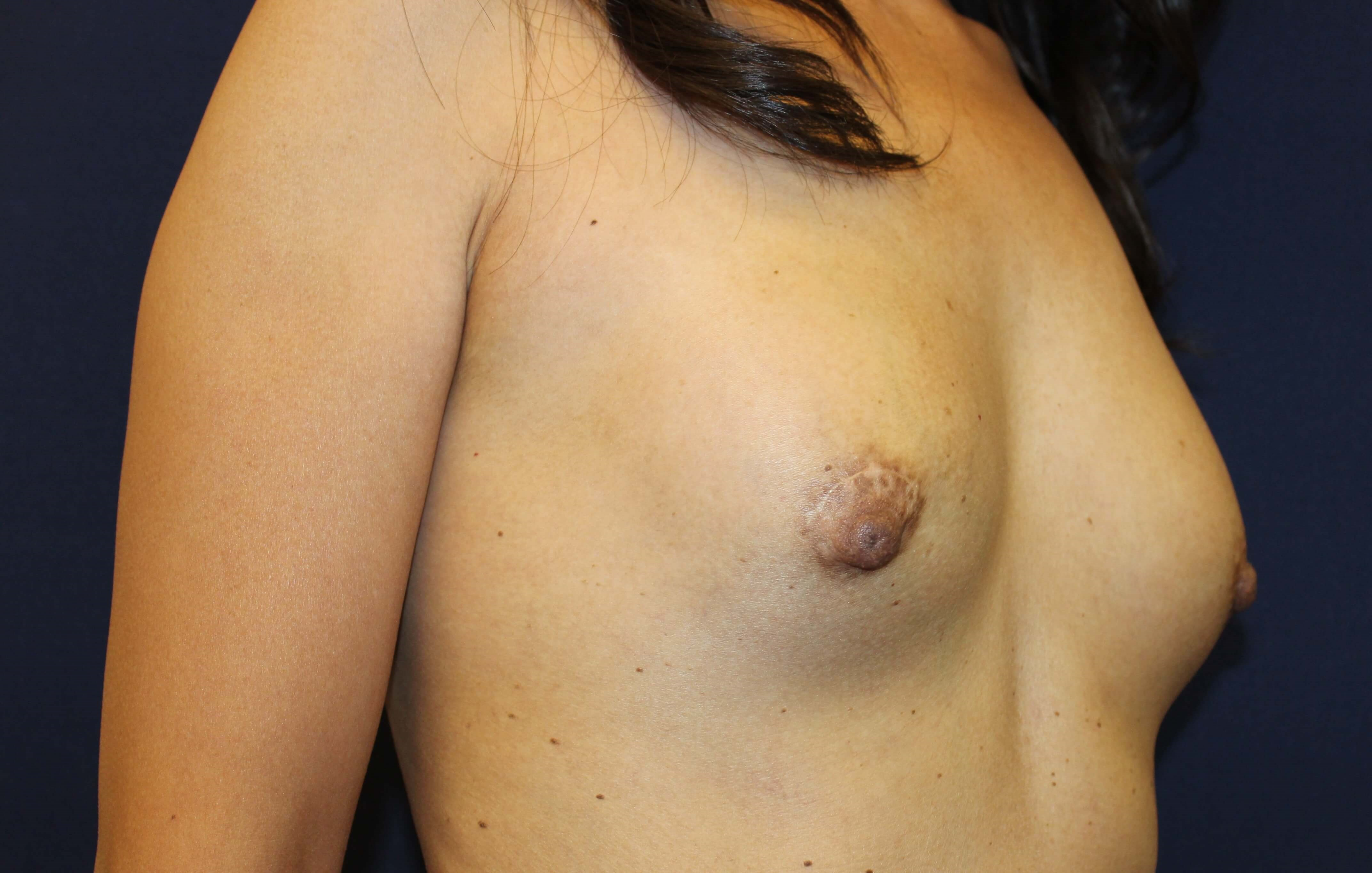 Breast Augmentation San Diego After