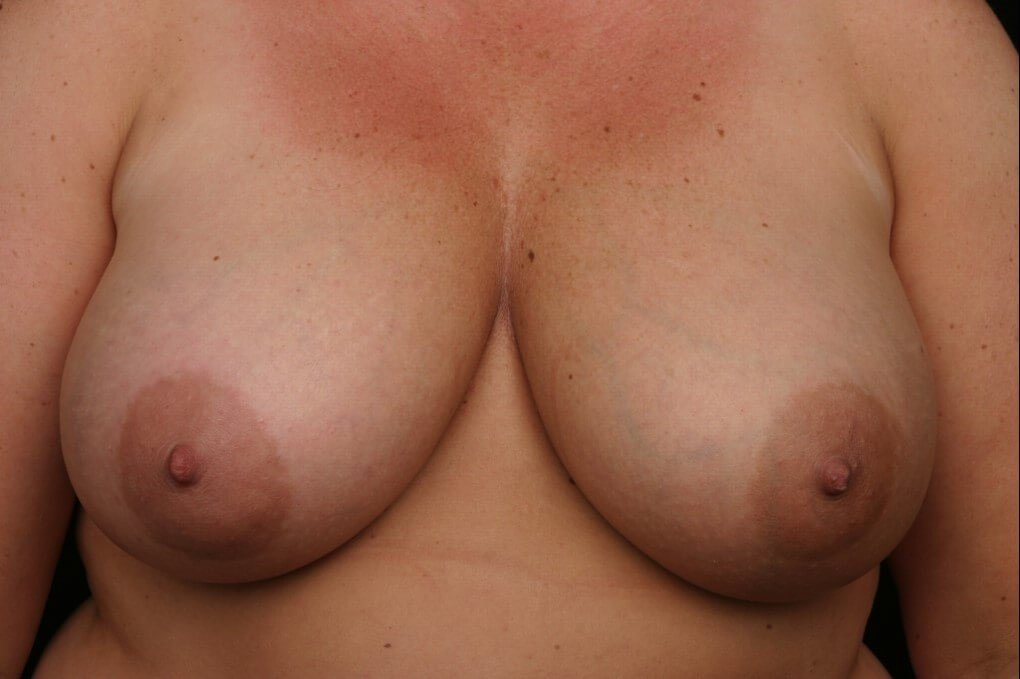 Left breast reconstruction Before front view