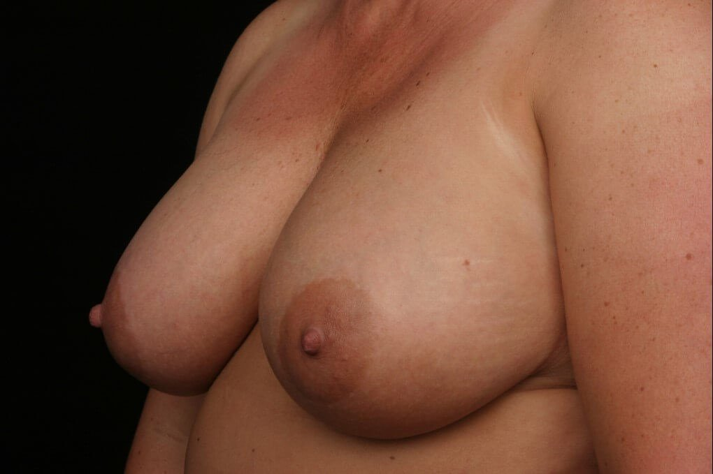 Left breast reconstruction Before side view