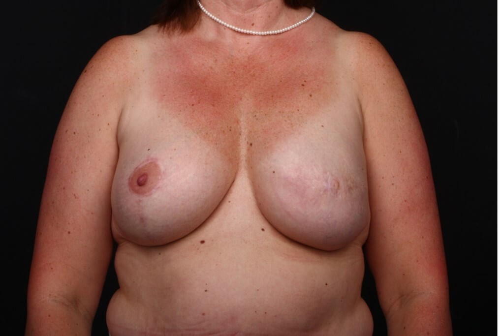 Left breast reconstruction Front view implant