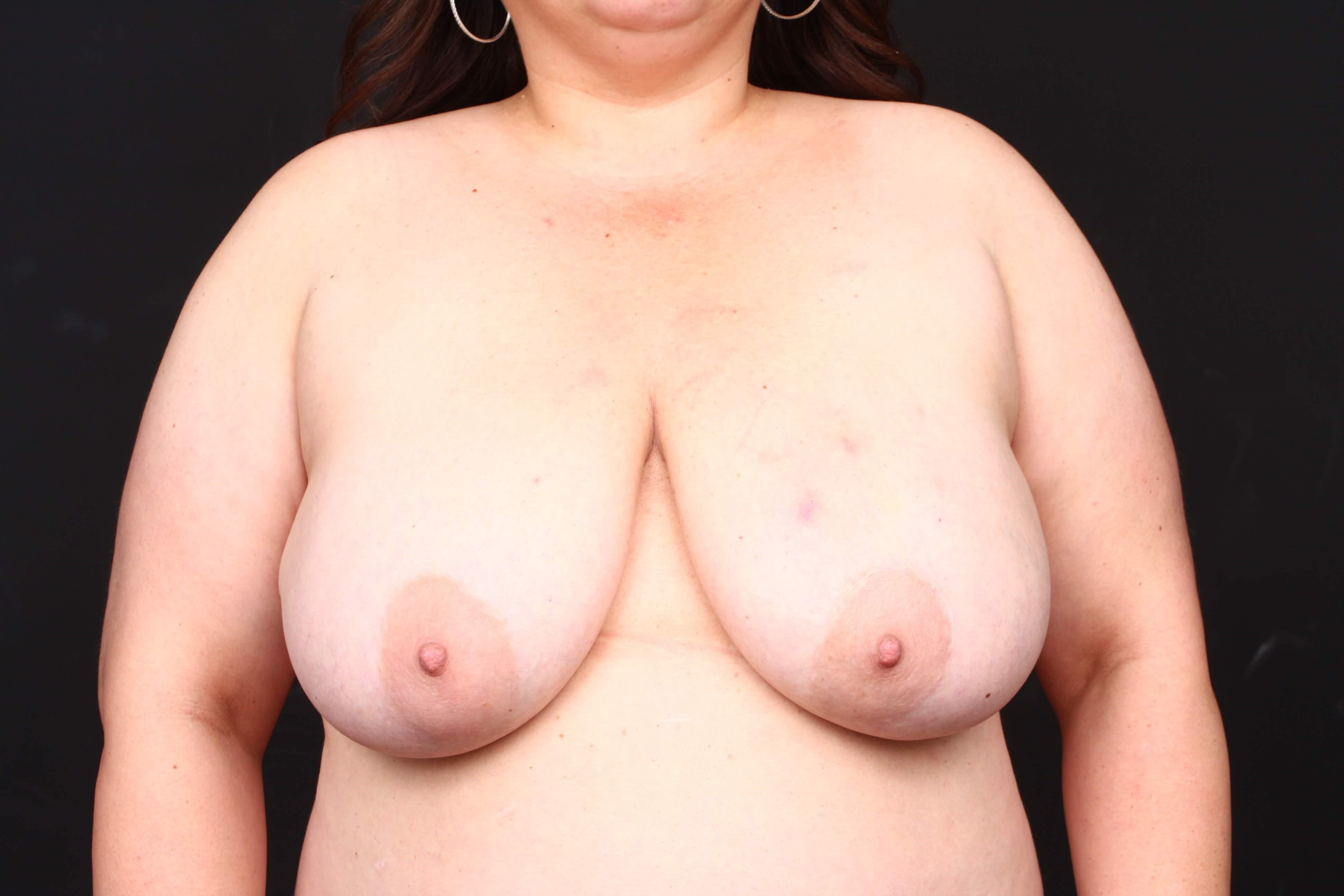 Breast reconstruction Before front view