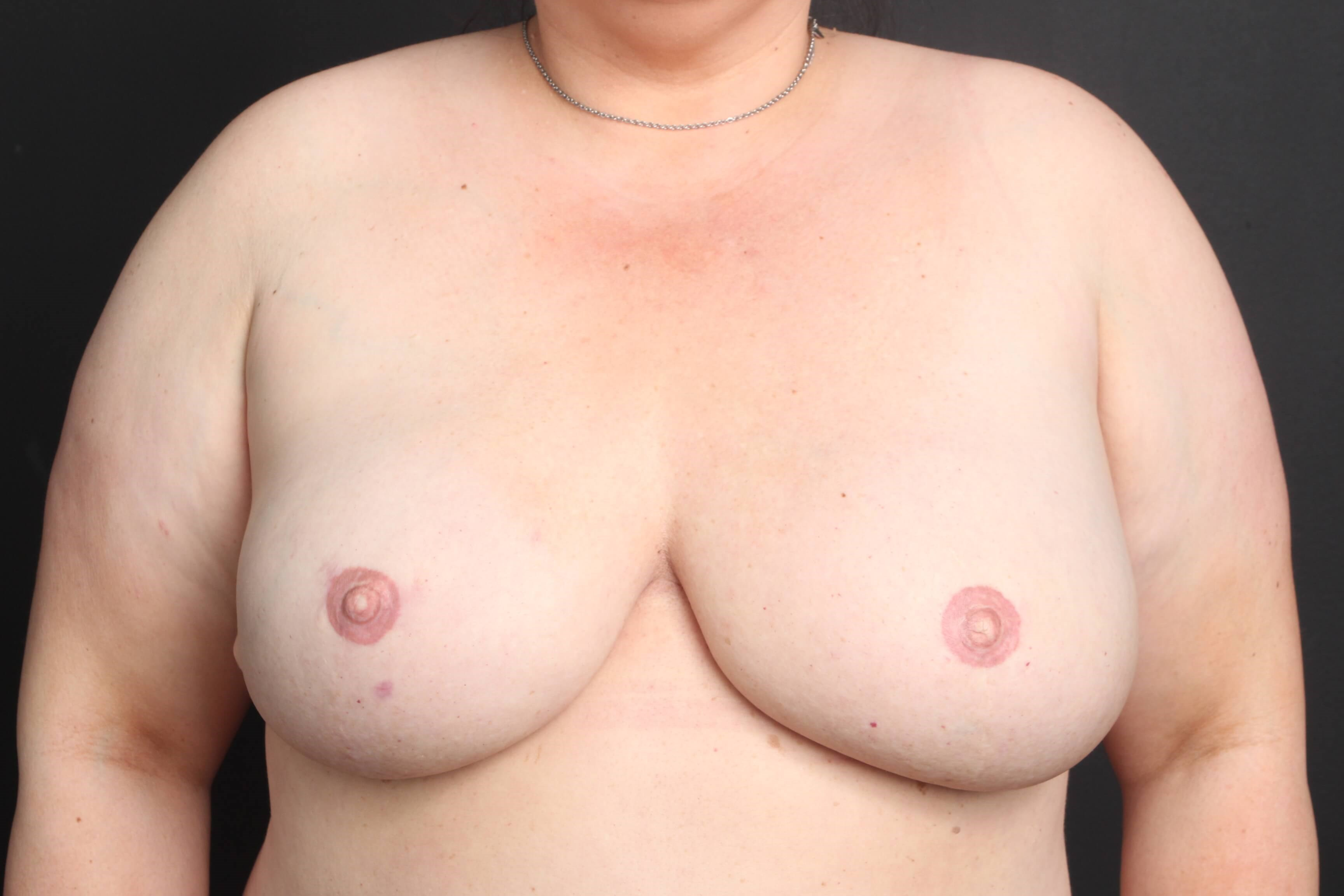 Breast reconstruction Front view with implants