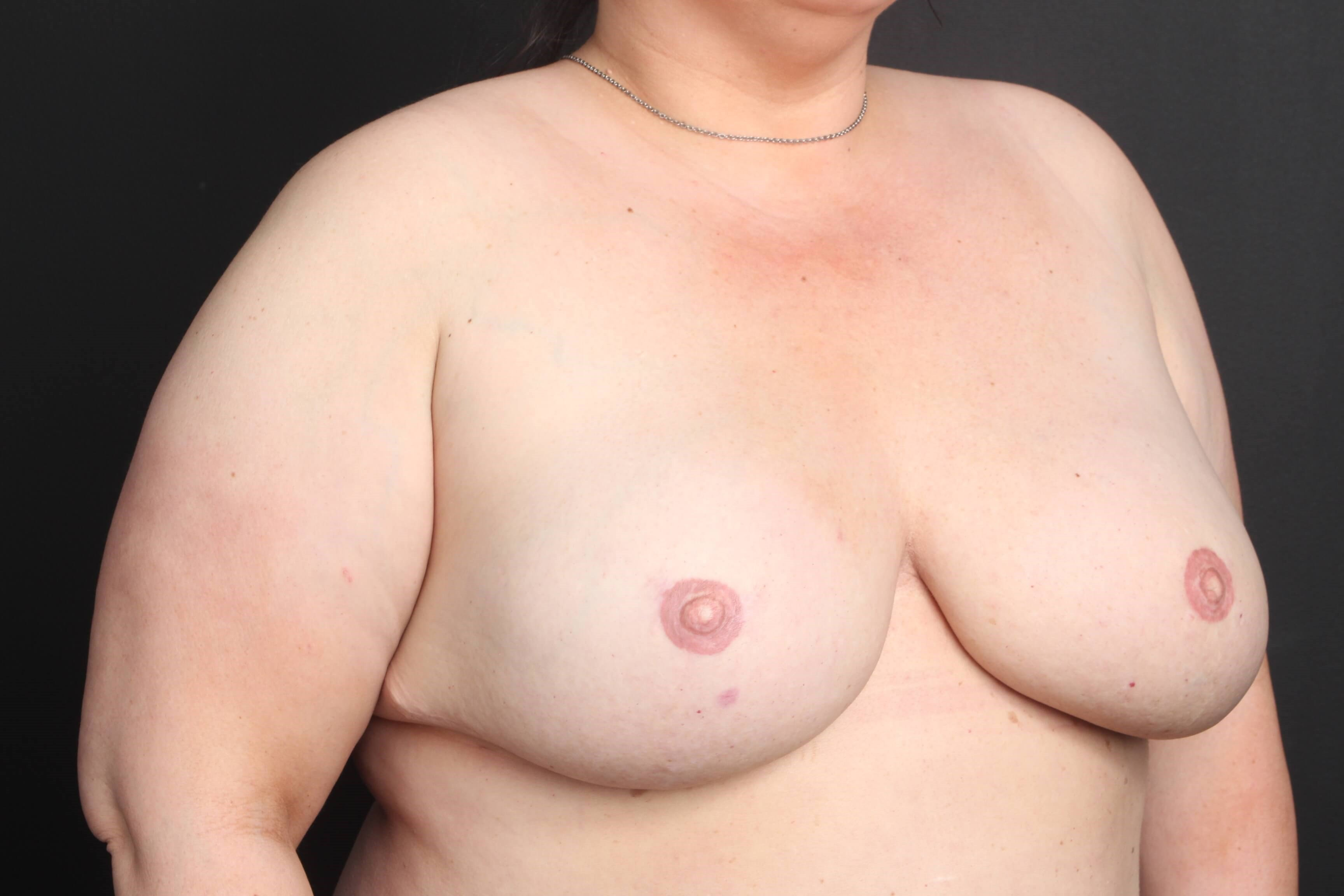 Breast reconstruction Side view with implants