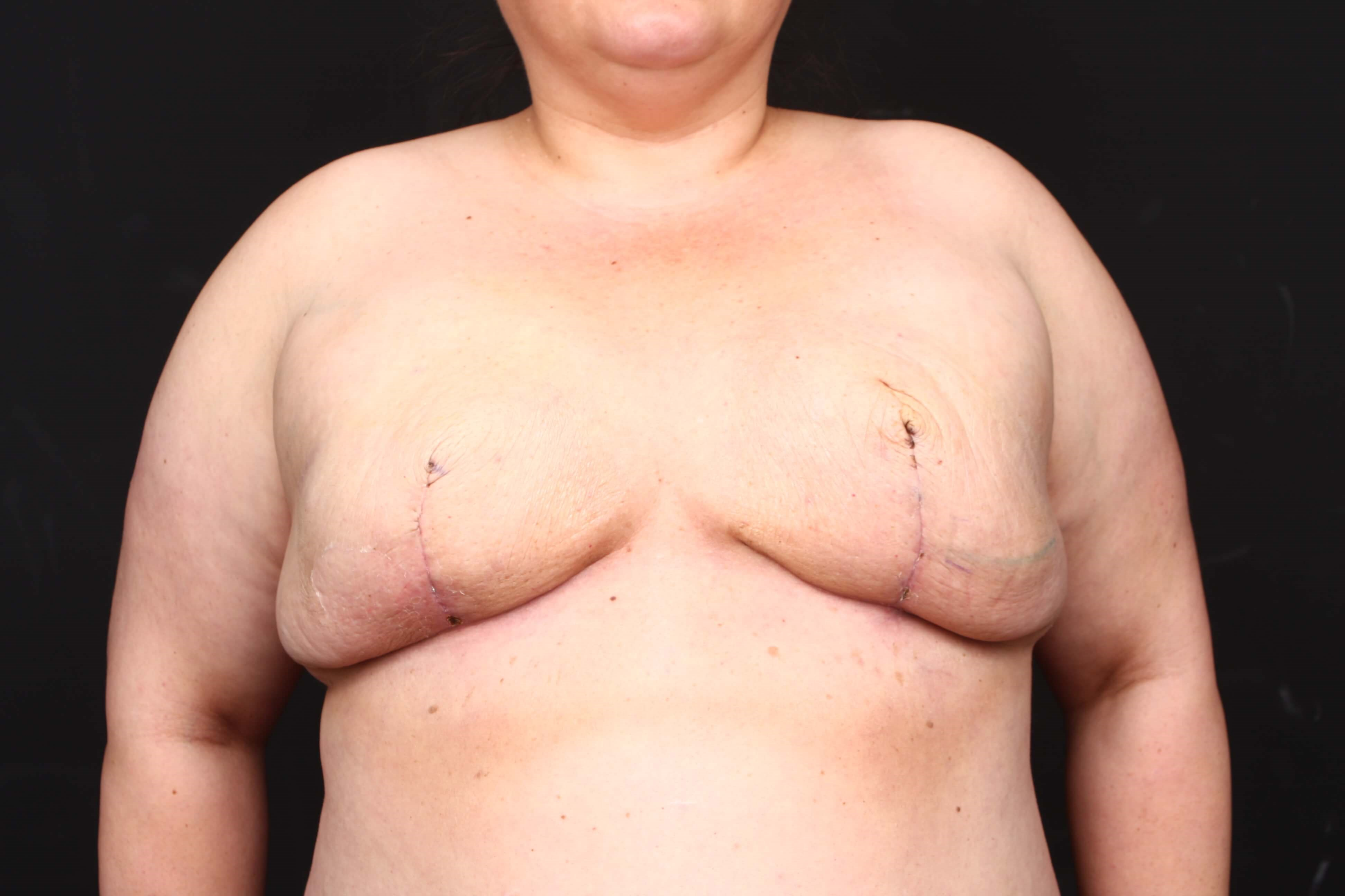 Breast reconstruction Front with tissue expanders