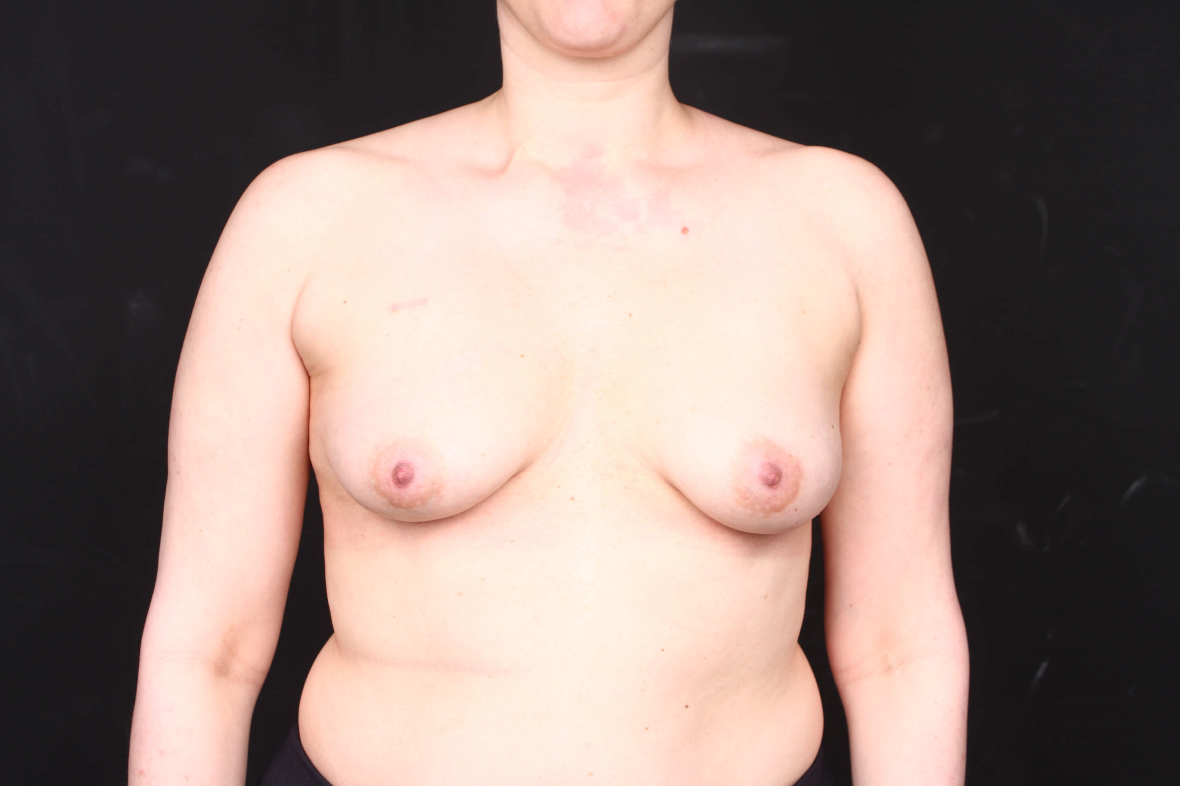 Breast reconstruction w/ flap Before  front view