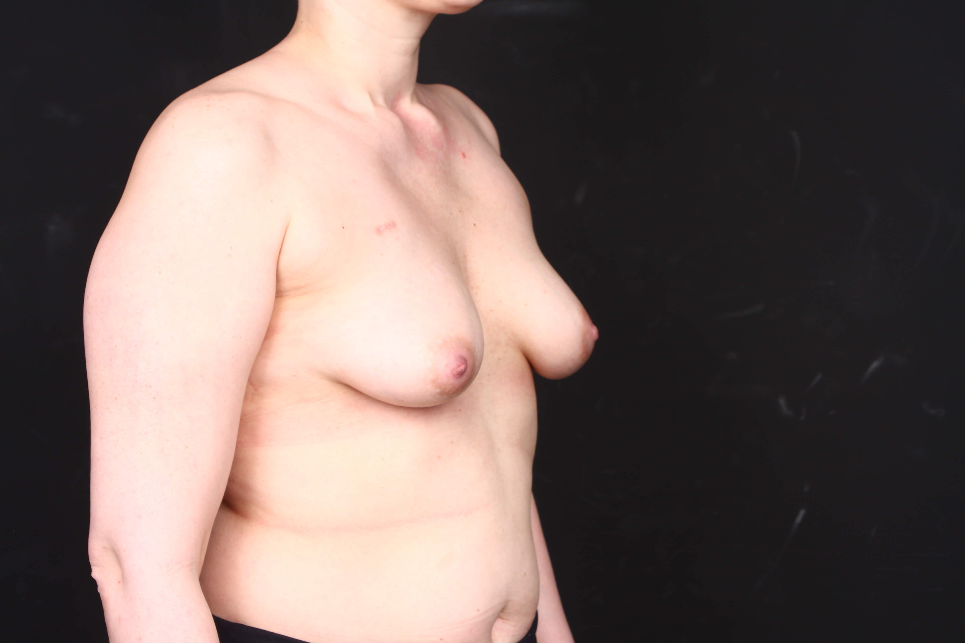 Breast reconstruction w/ flap Before side view