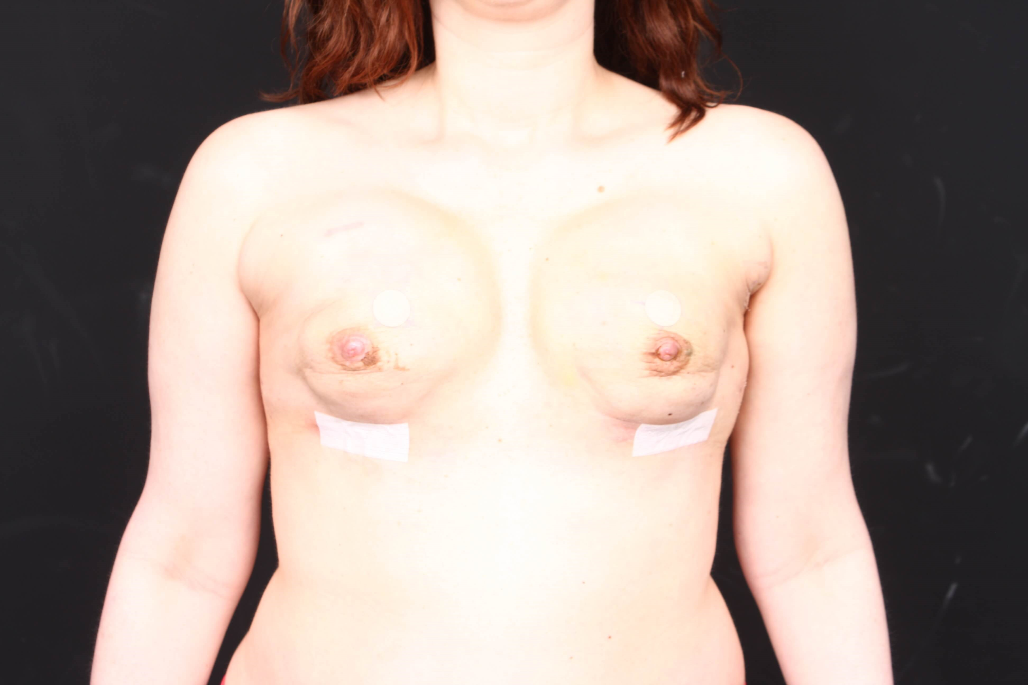 Breast reconstruction w/ flap Front tissue expanders