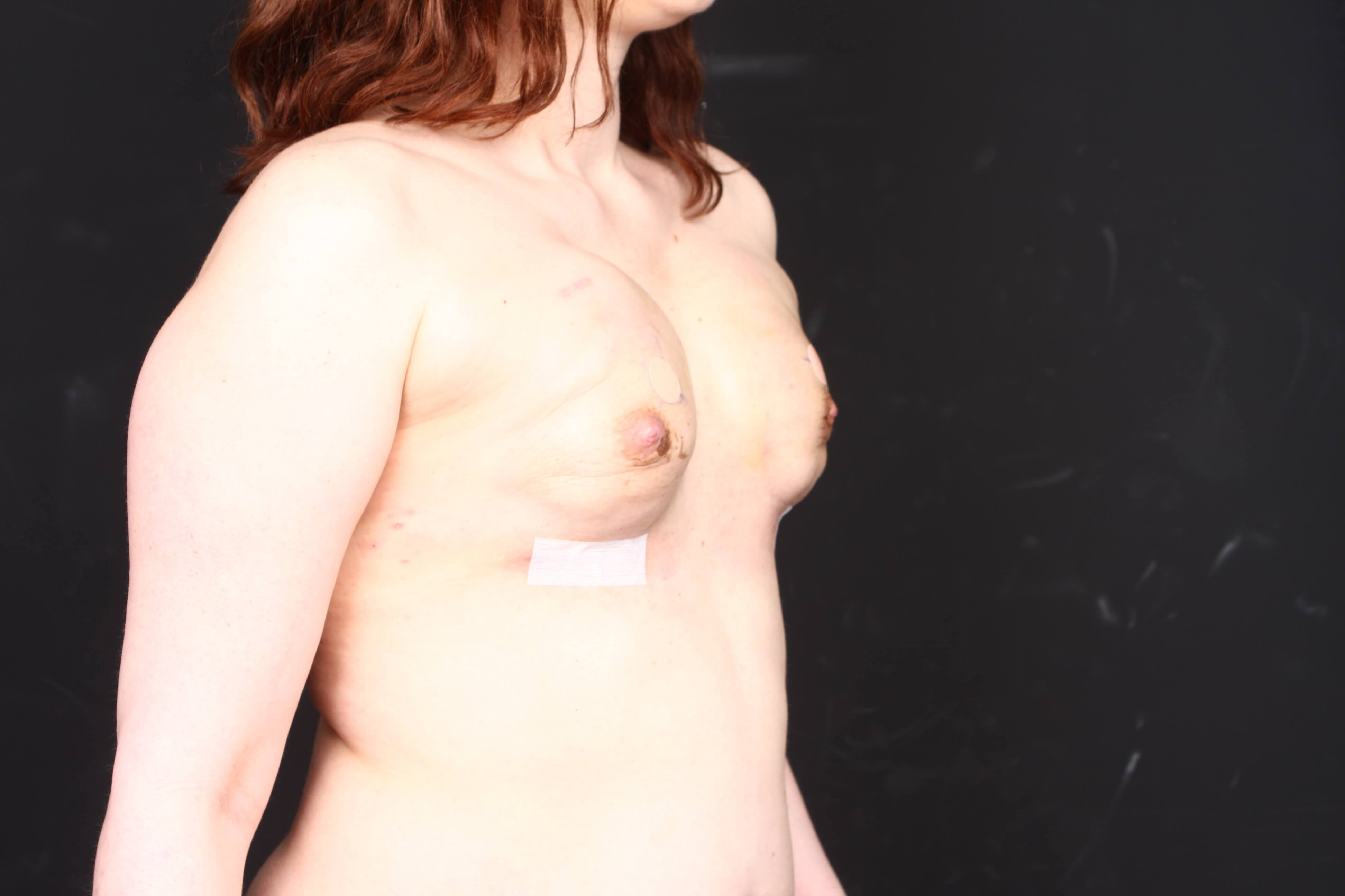 Breast reconstruction w/ flap Side tissue expanders