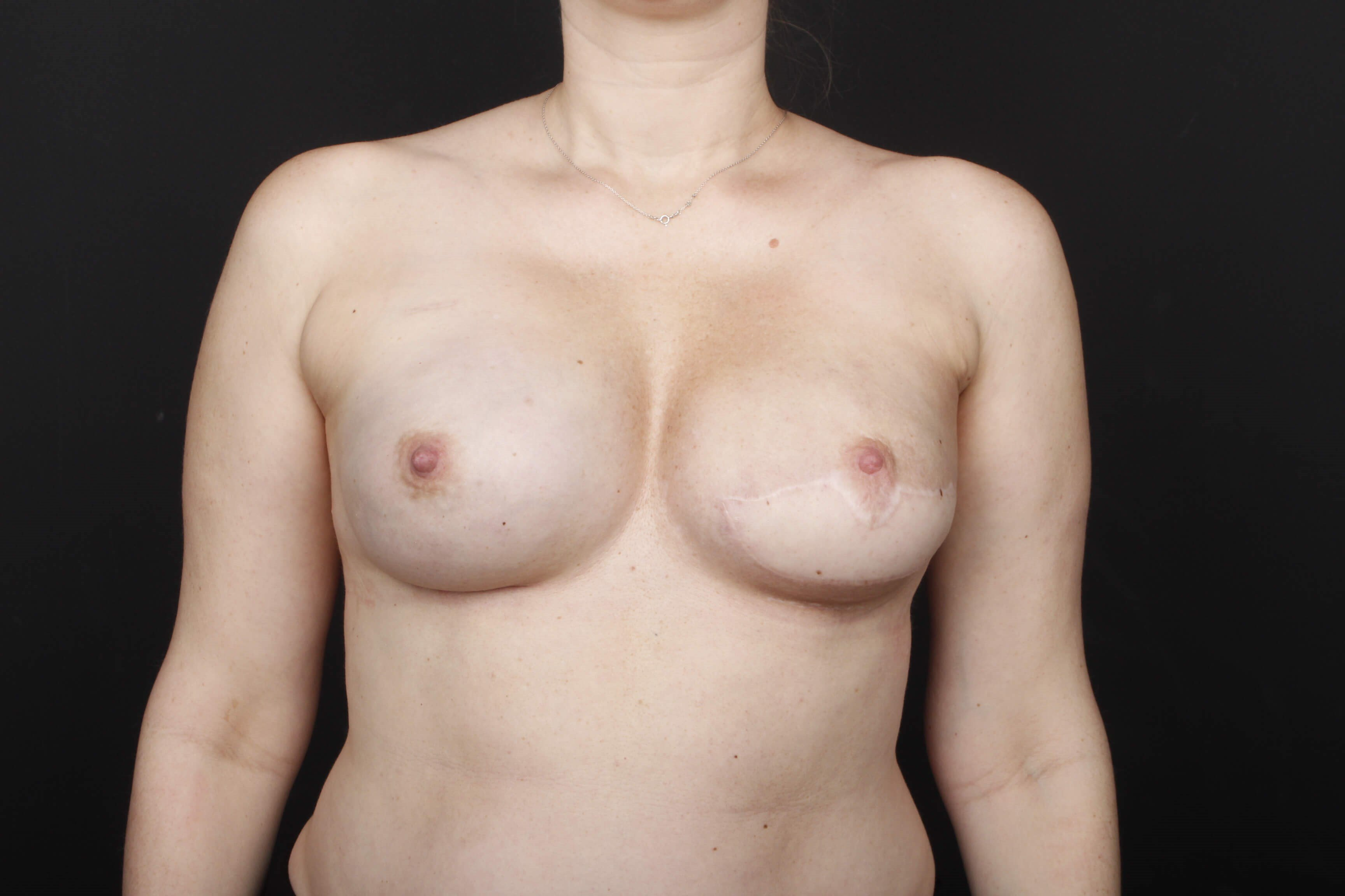Breast reconstruction w/ flap After front view