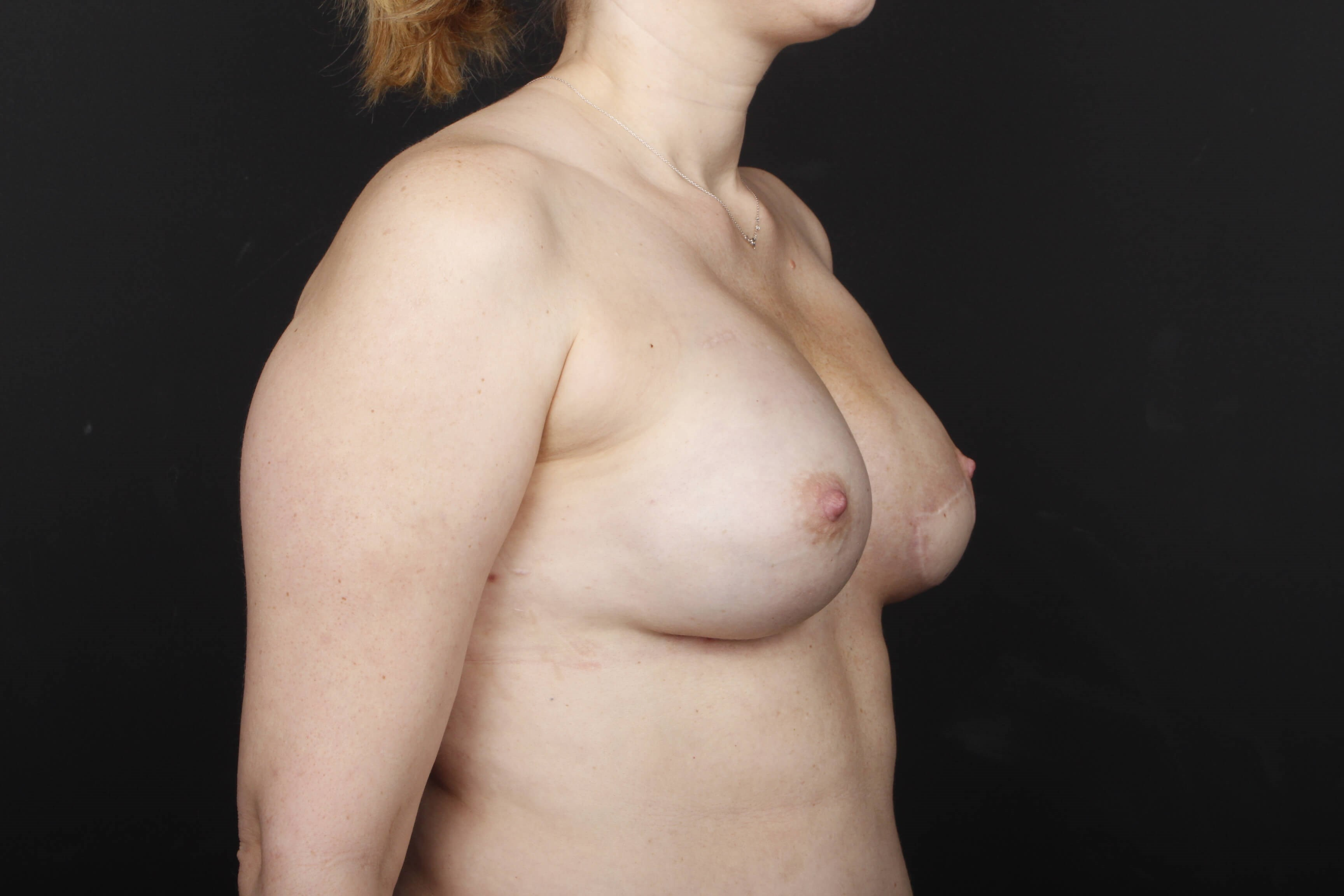 Breast reconstruction w/ flap After side view