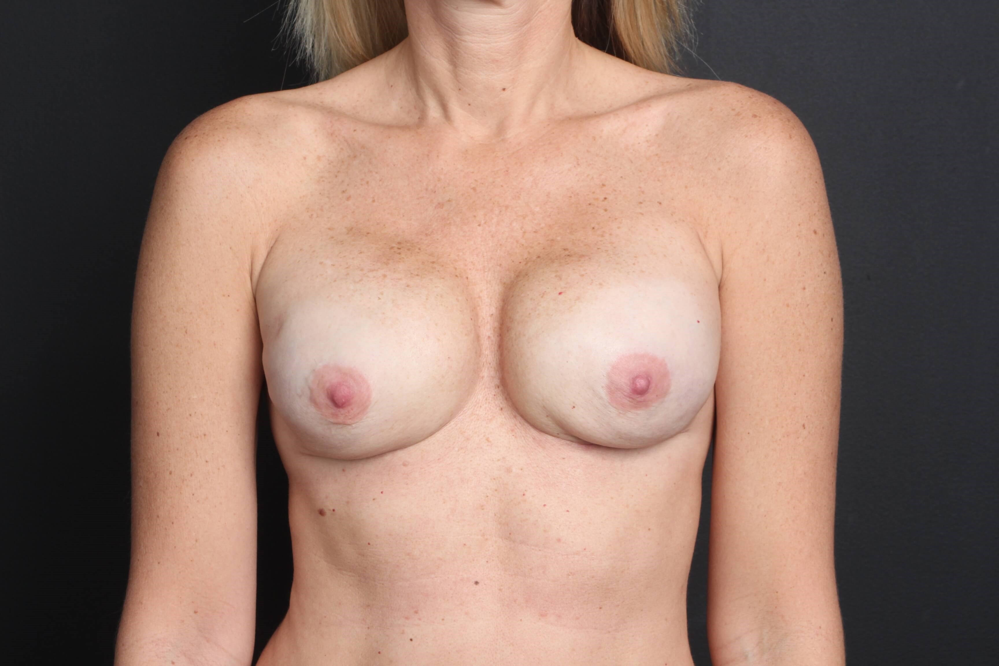 Breast reconstruction Front Tissue expanders