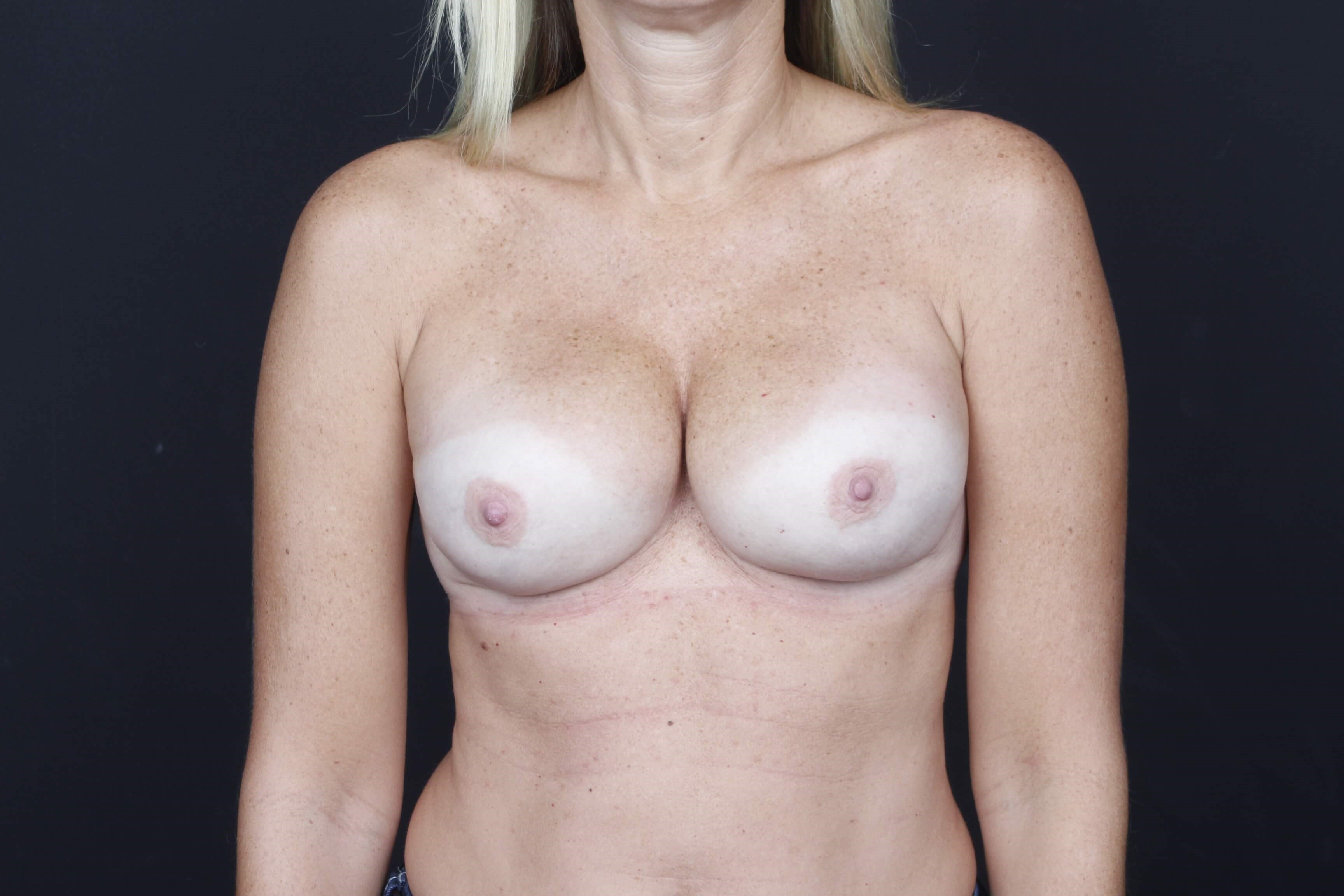 Breast reconstruction Front view implants
