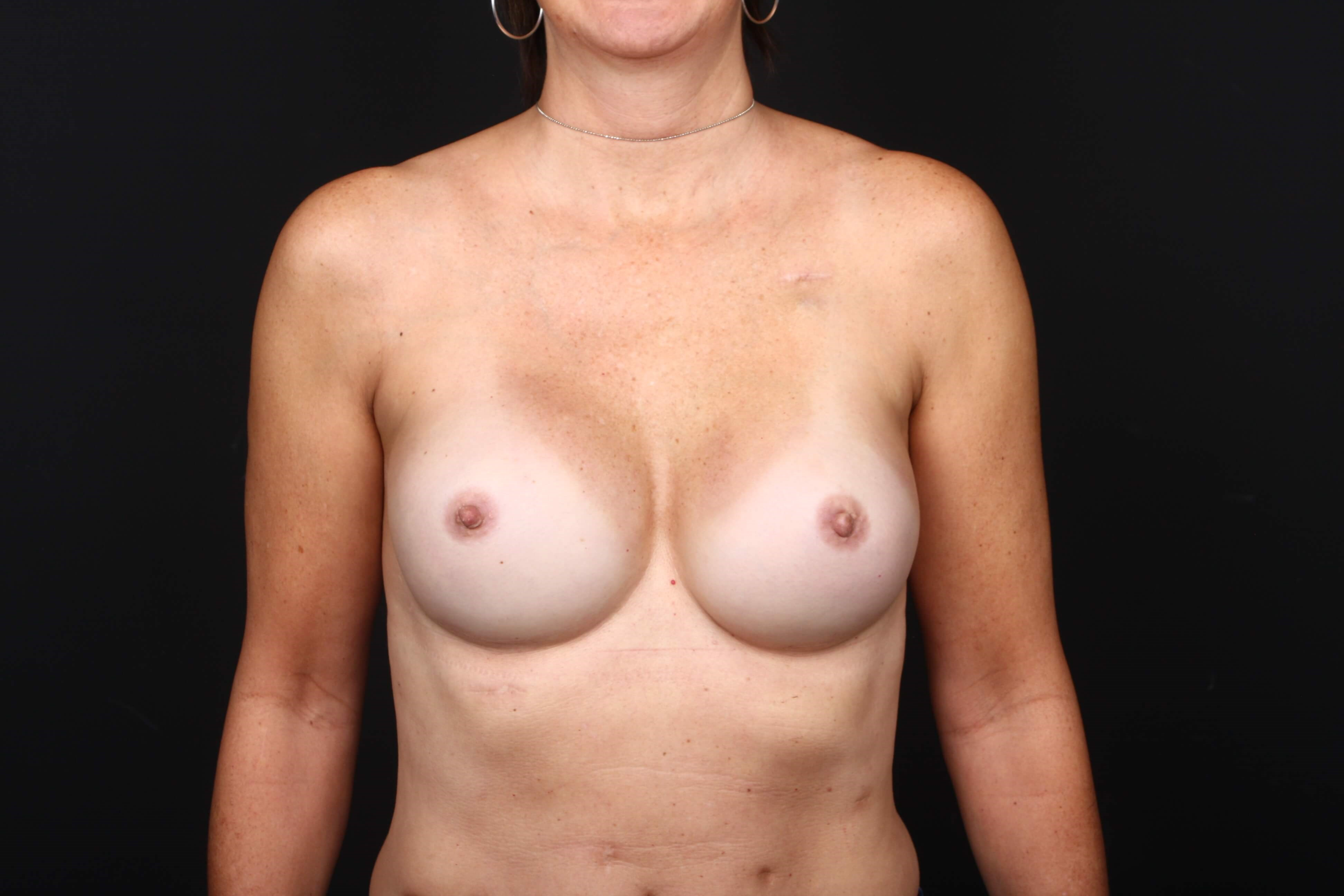 Prophylactic reconstruction Front view implants