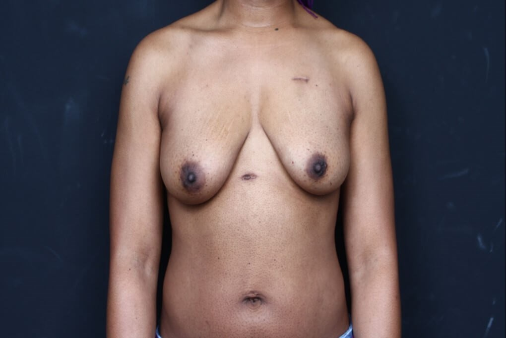 Breast reconstruction 410MF Before front view