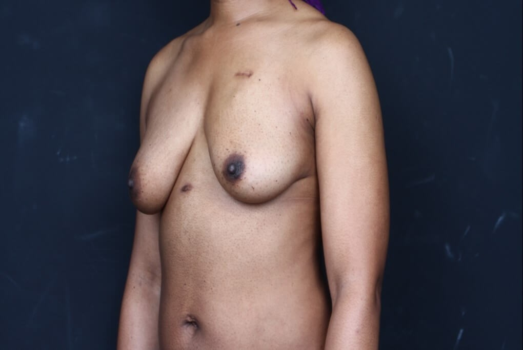 Breast reconstruction 410MF Before side view