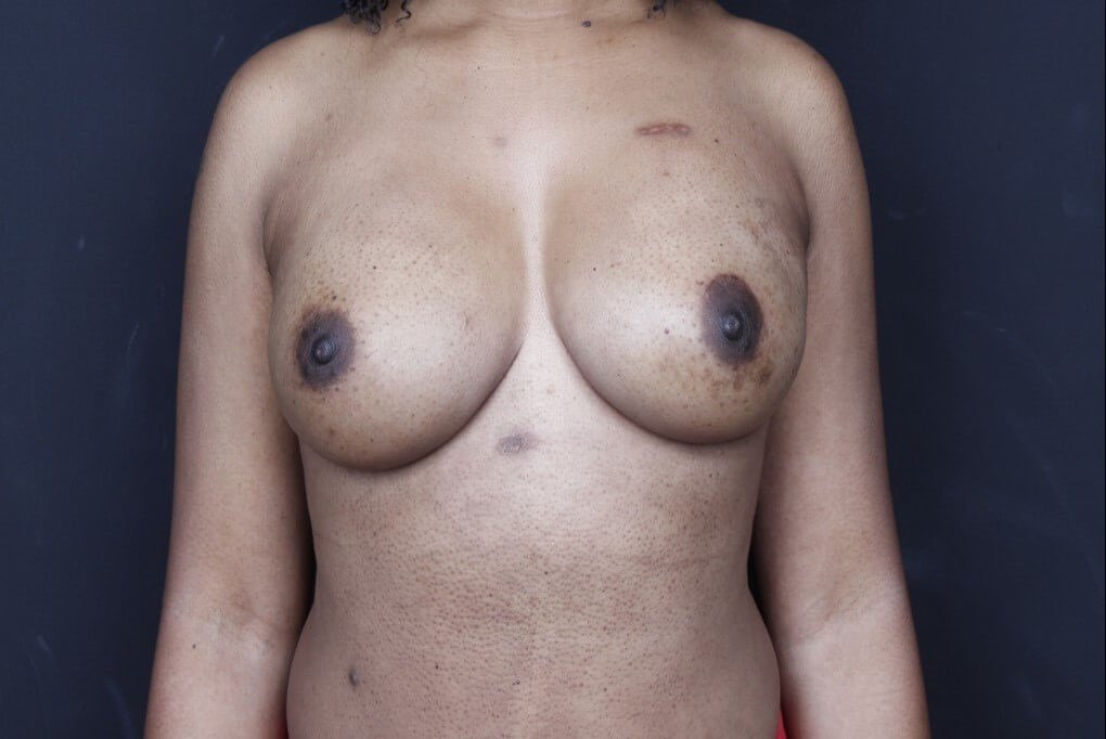 Breast reconstruction 410MF Front view implants