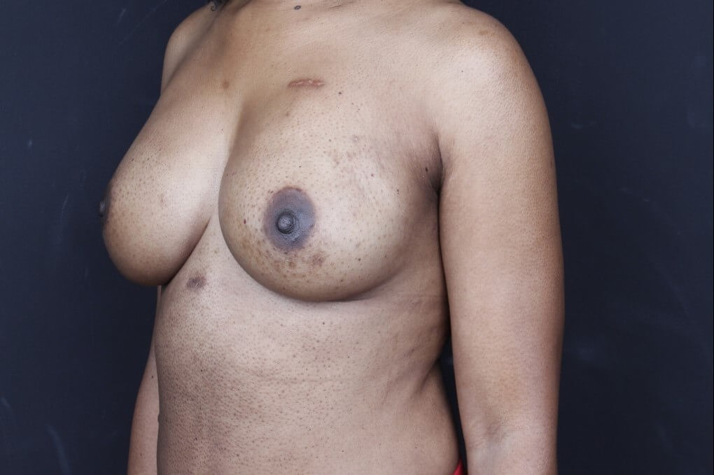 Breast reconstruction 410MF Side view implants