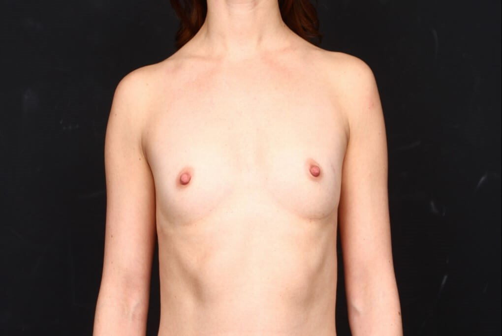 Breast augmentation 410 FM Before front view