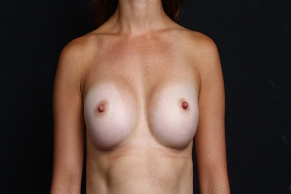 Breast augmentation 410 FM After front view