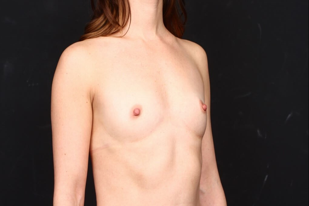 Breast augmentation 410 FM Before side  view