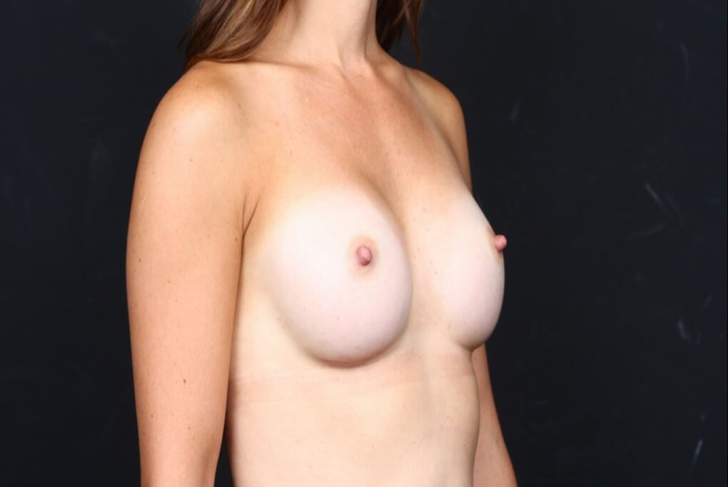 Breast augmentation 410 FM After side view