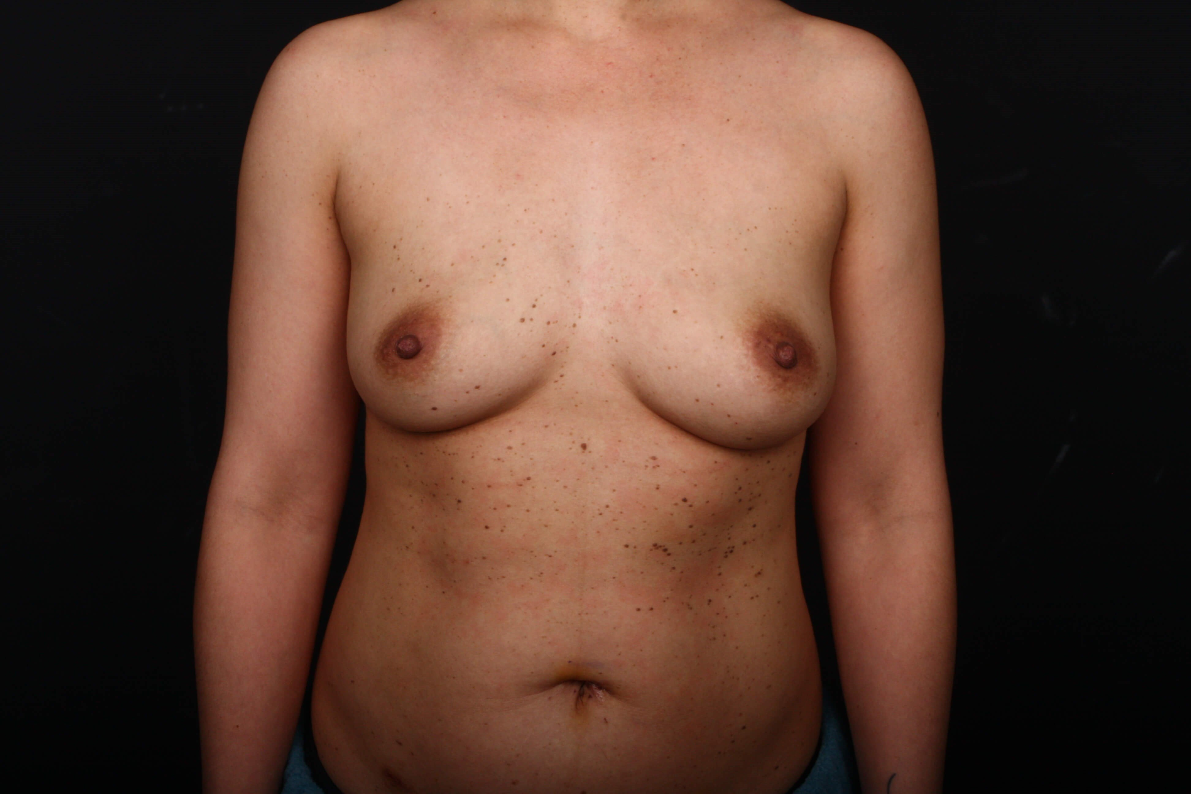 Prophylactic mastectomy BRCA + Before front view
