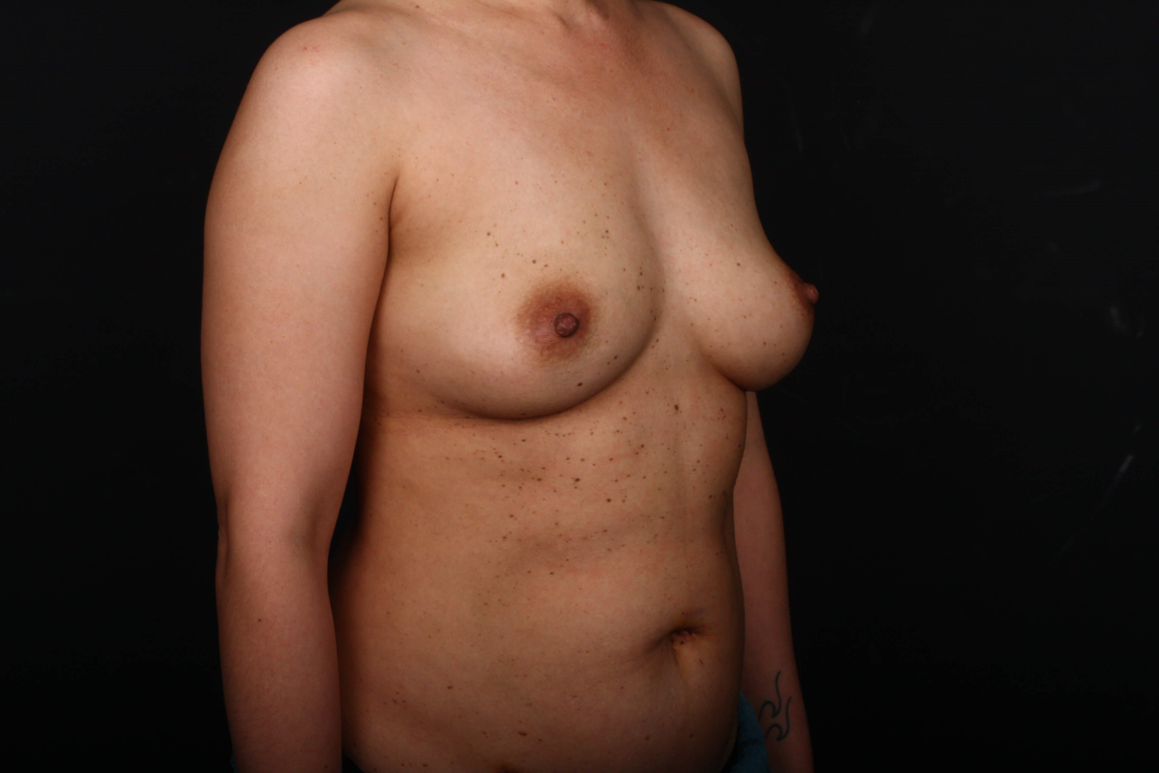 Prophylactic mastectomy BRCA + Before side view