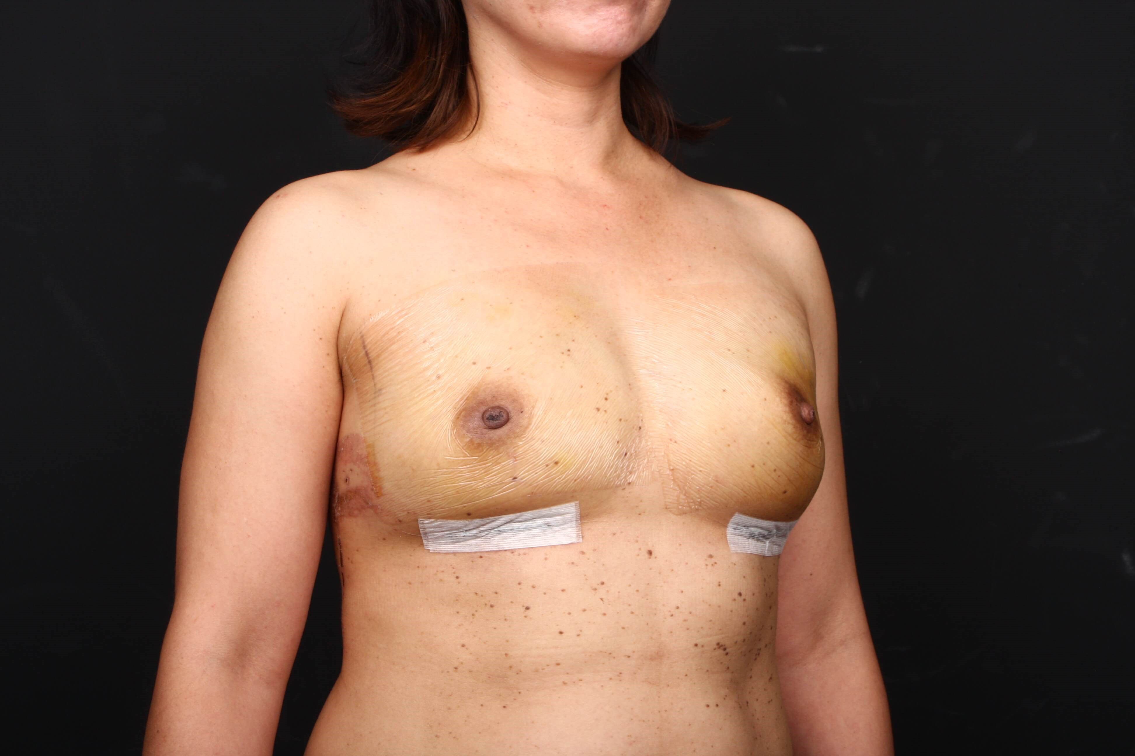 Prophylactic mastectomy BRCA + Side view tissue expanders