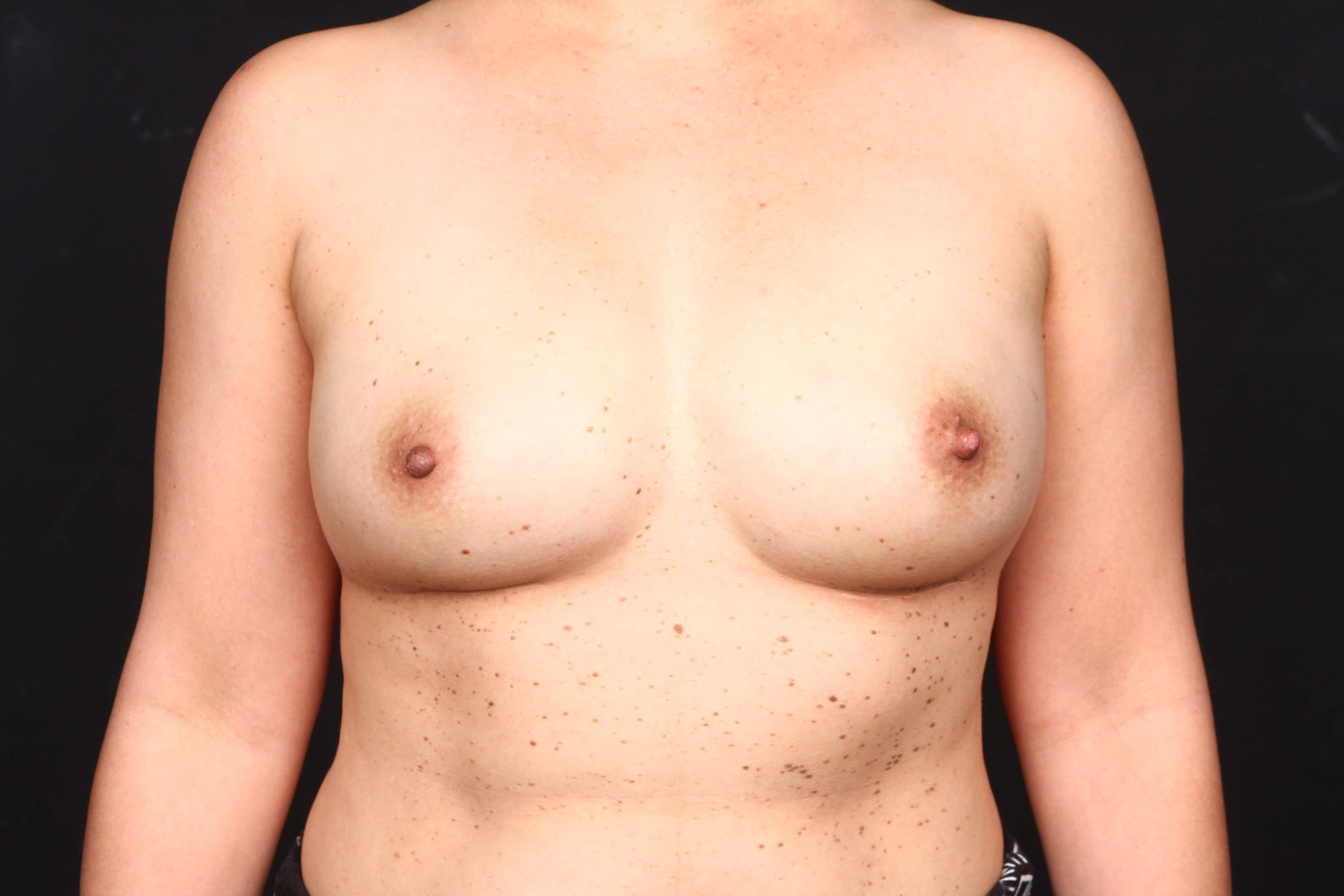 Prophylactic mastectomy BRCA + Front view implants