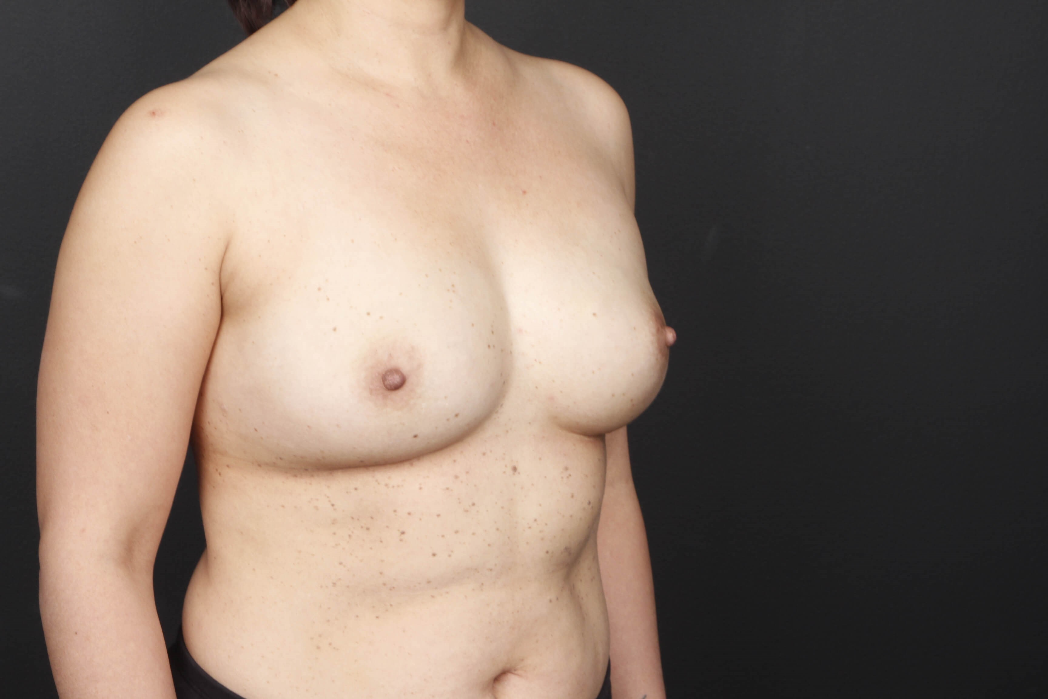 Prophylactic mastectomy BRCA + Side view implants