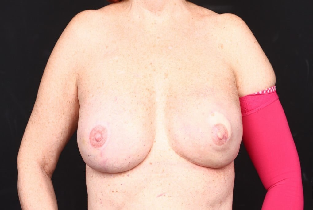 Left latissimus reconstruction Front view  implants
