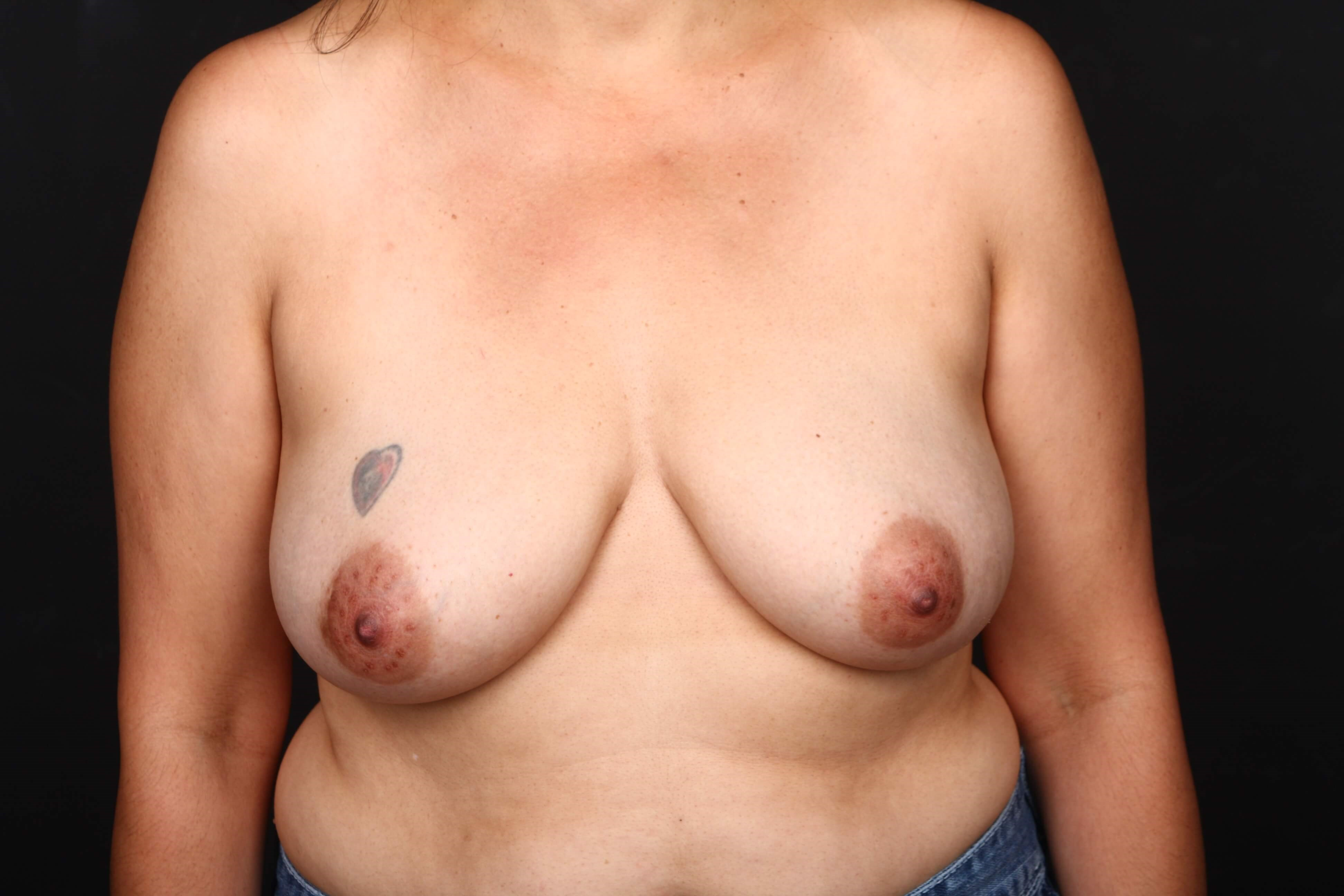 52 y/o breast reconstruction Before front view