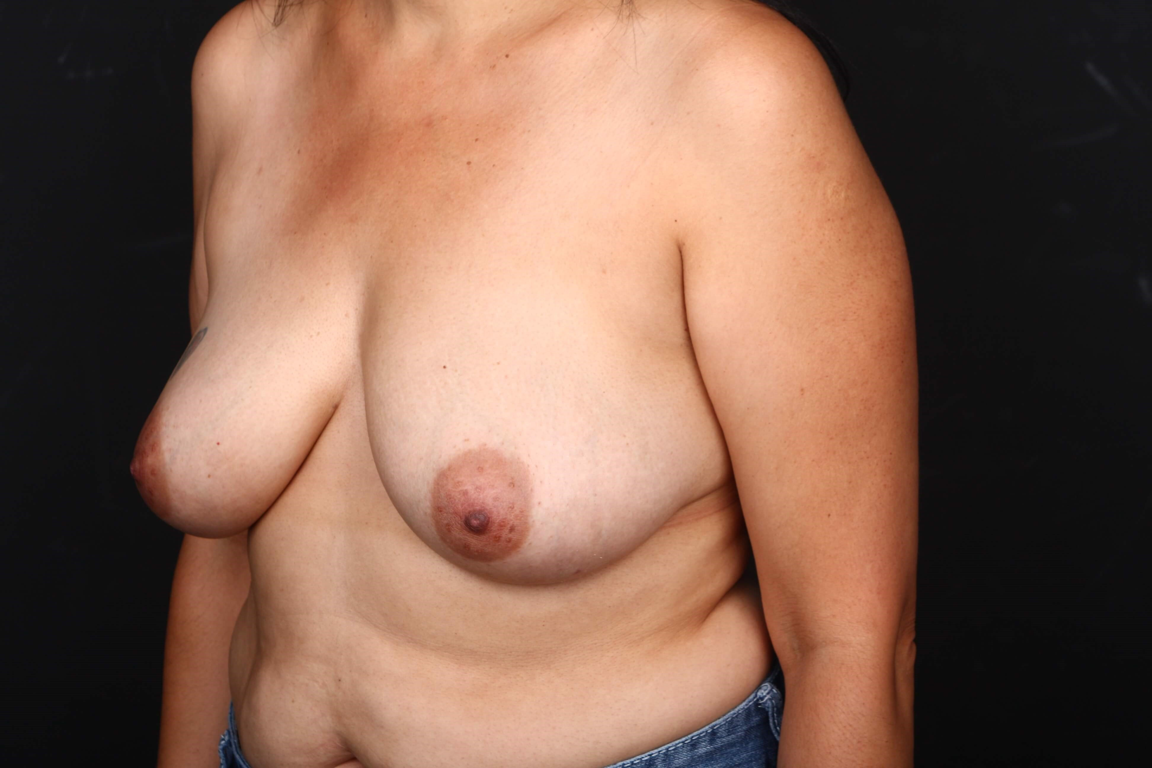 52 y/o breast reconstruction Before side view