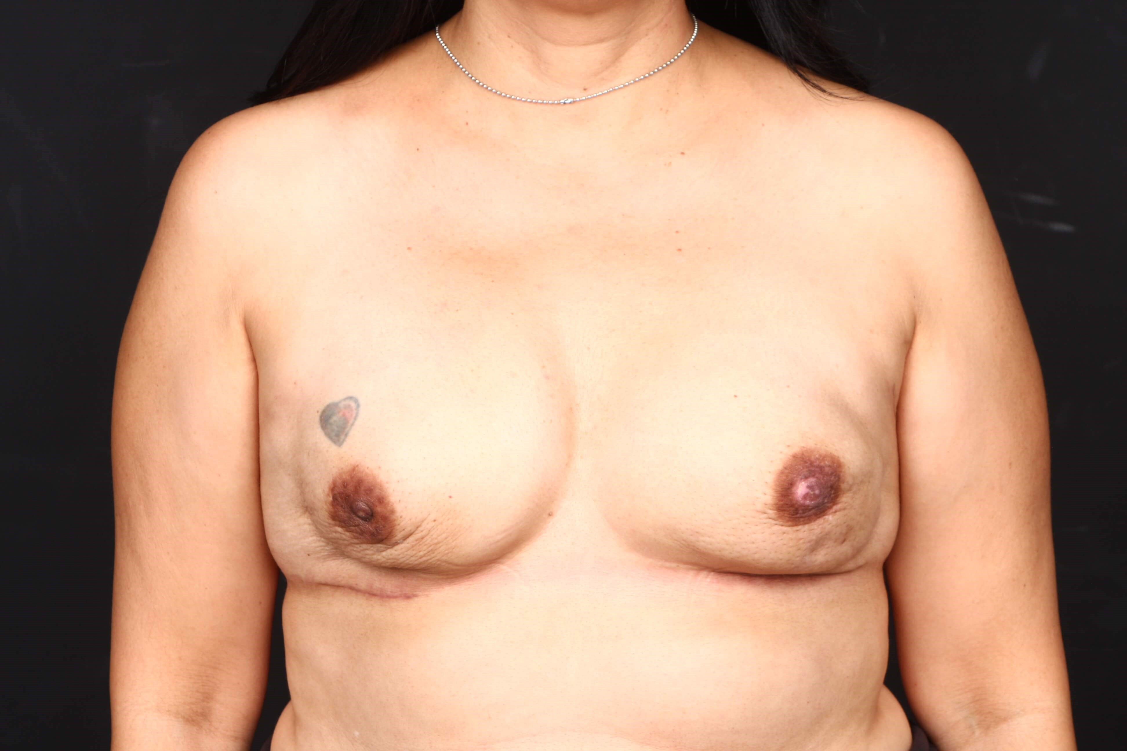 52 y/o breast reconstruction Front view tissue expanders