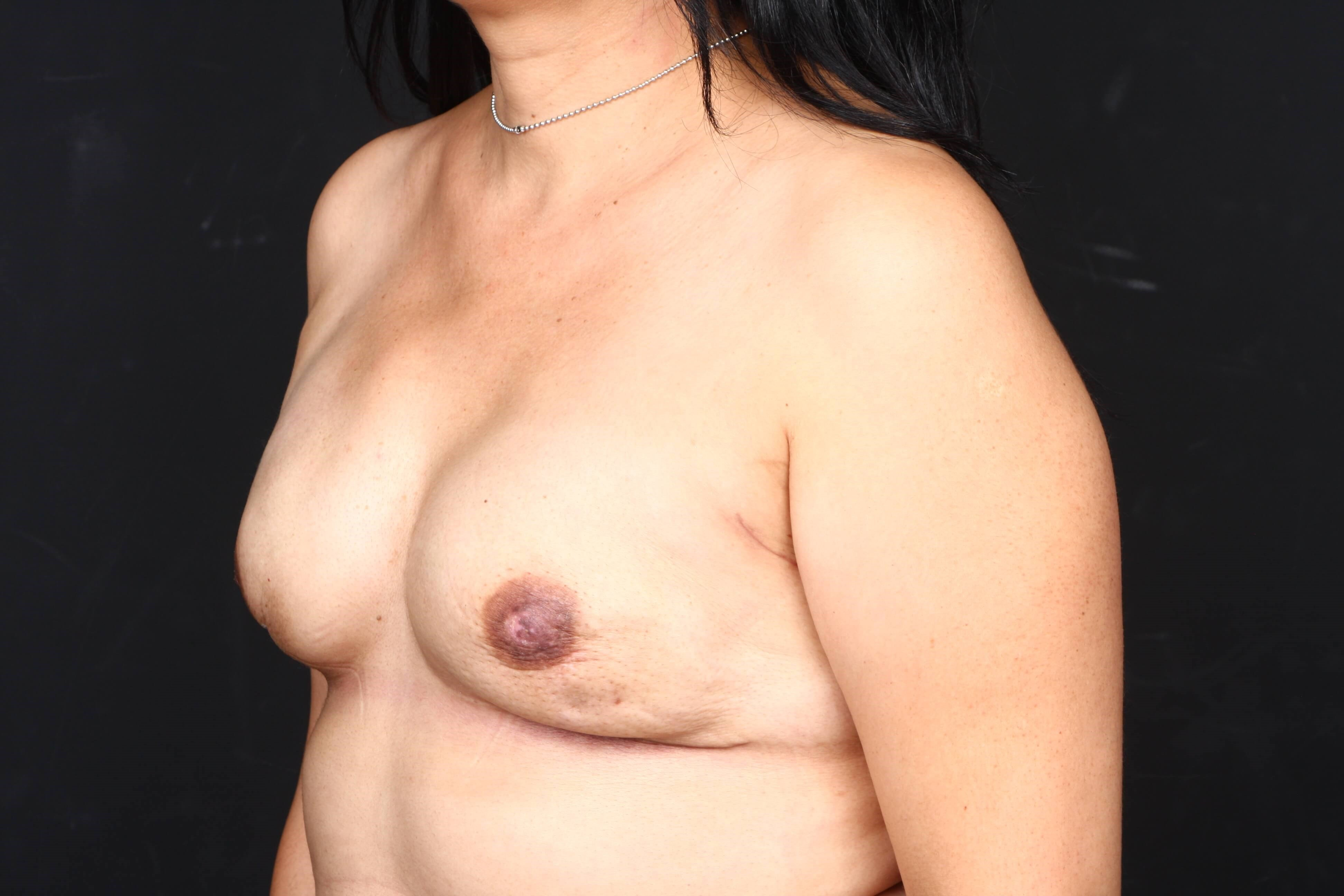 52 y/o breast reconstruction Side view tissue expanders