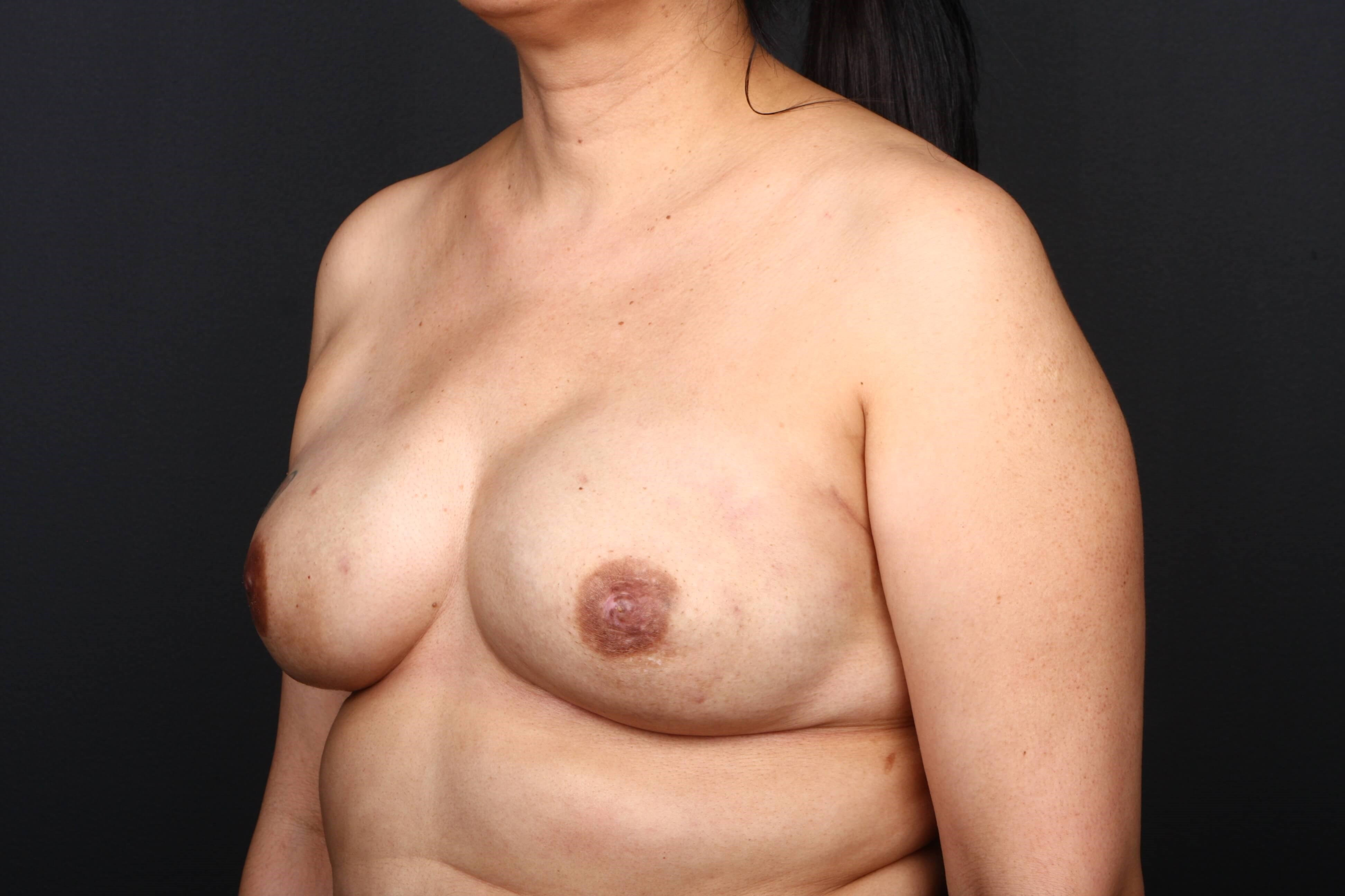 52 y/o breast reconstruction Side view implants