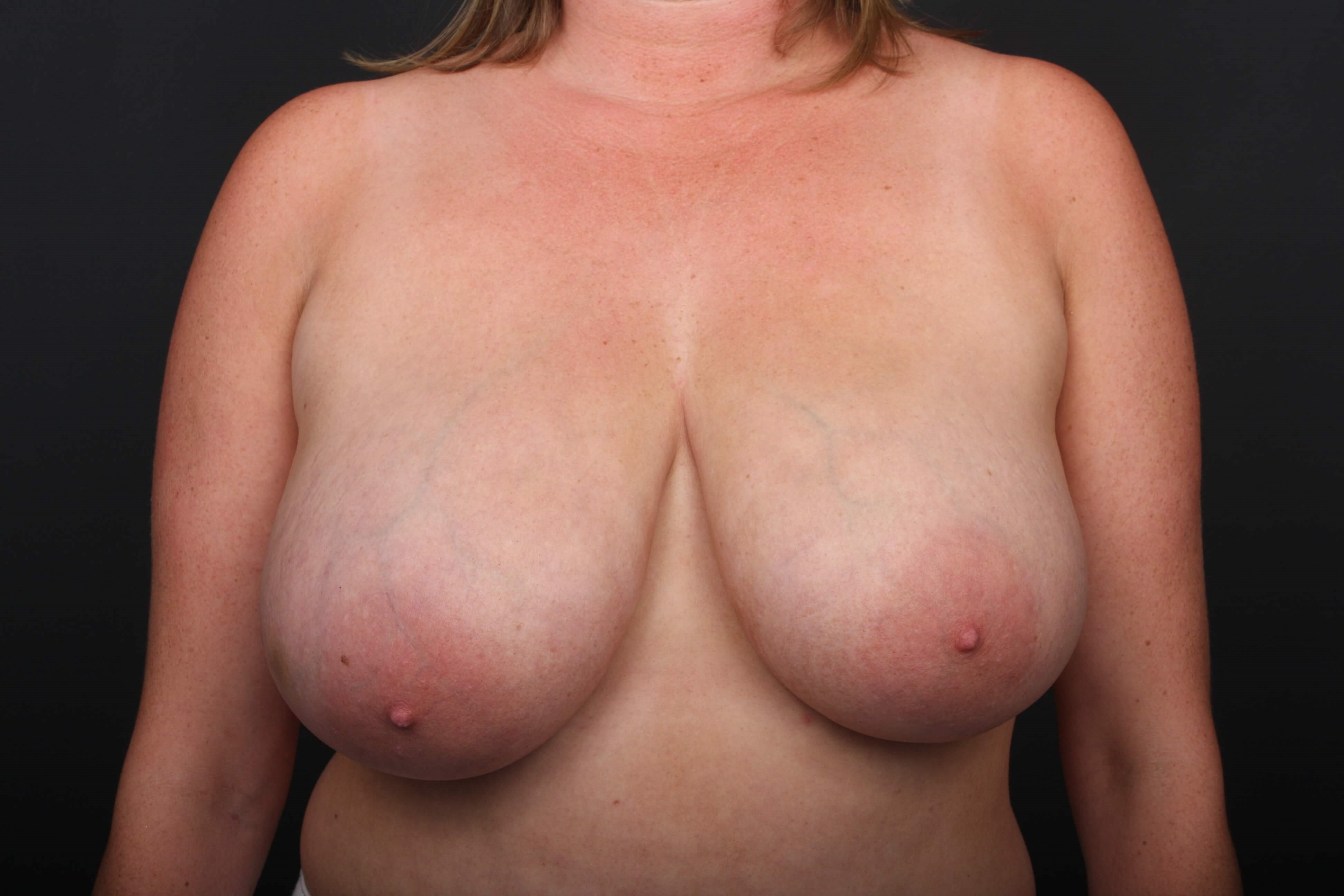 40 y/o breast reduction Before front view