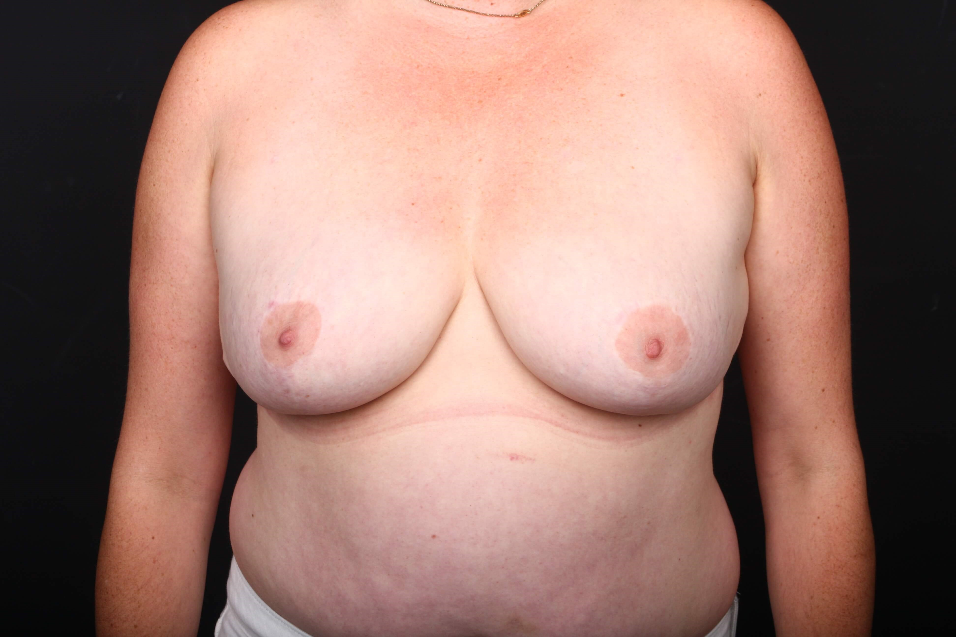 40 y/o breast reduction After front view