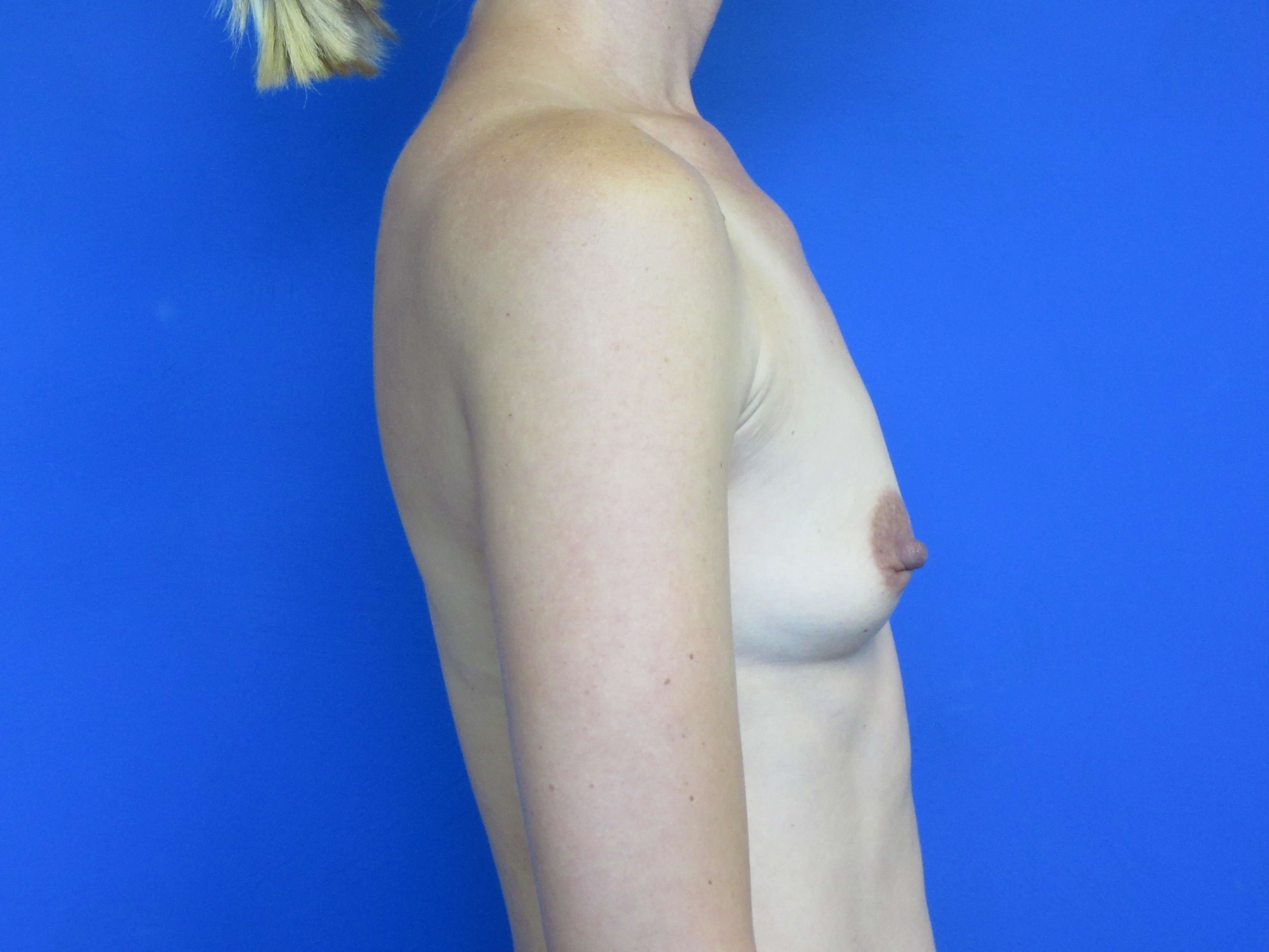 Side View of Augmentation Before